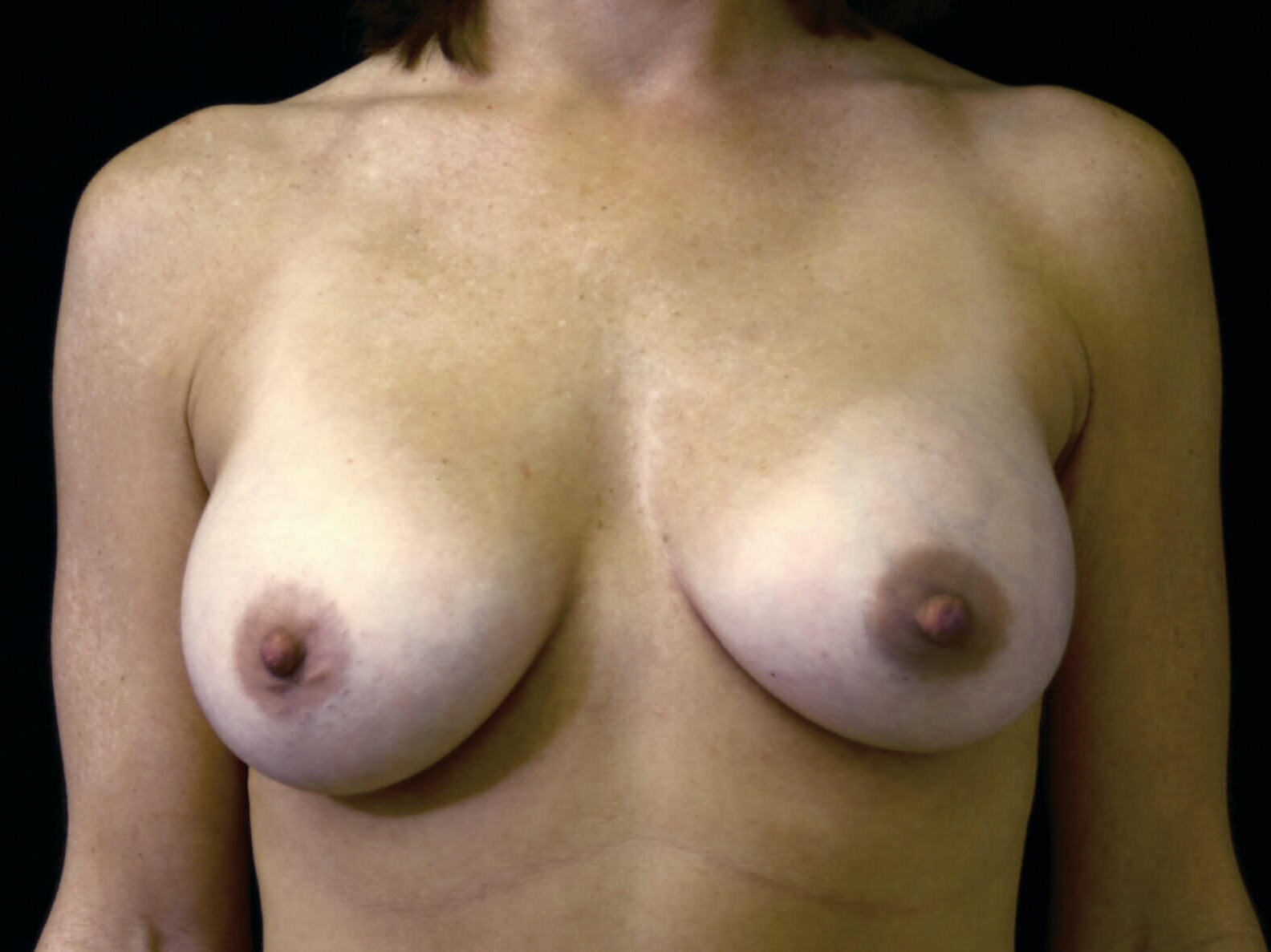 DALLAS TEXAS WOMAN HAS BREAST AUGMENTATION SURGERY WITH SILICONE GEL IMPLANTS