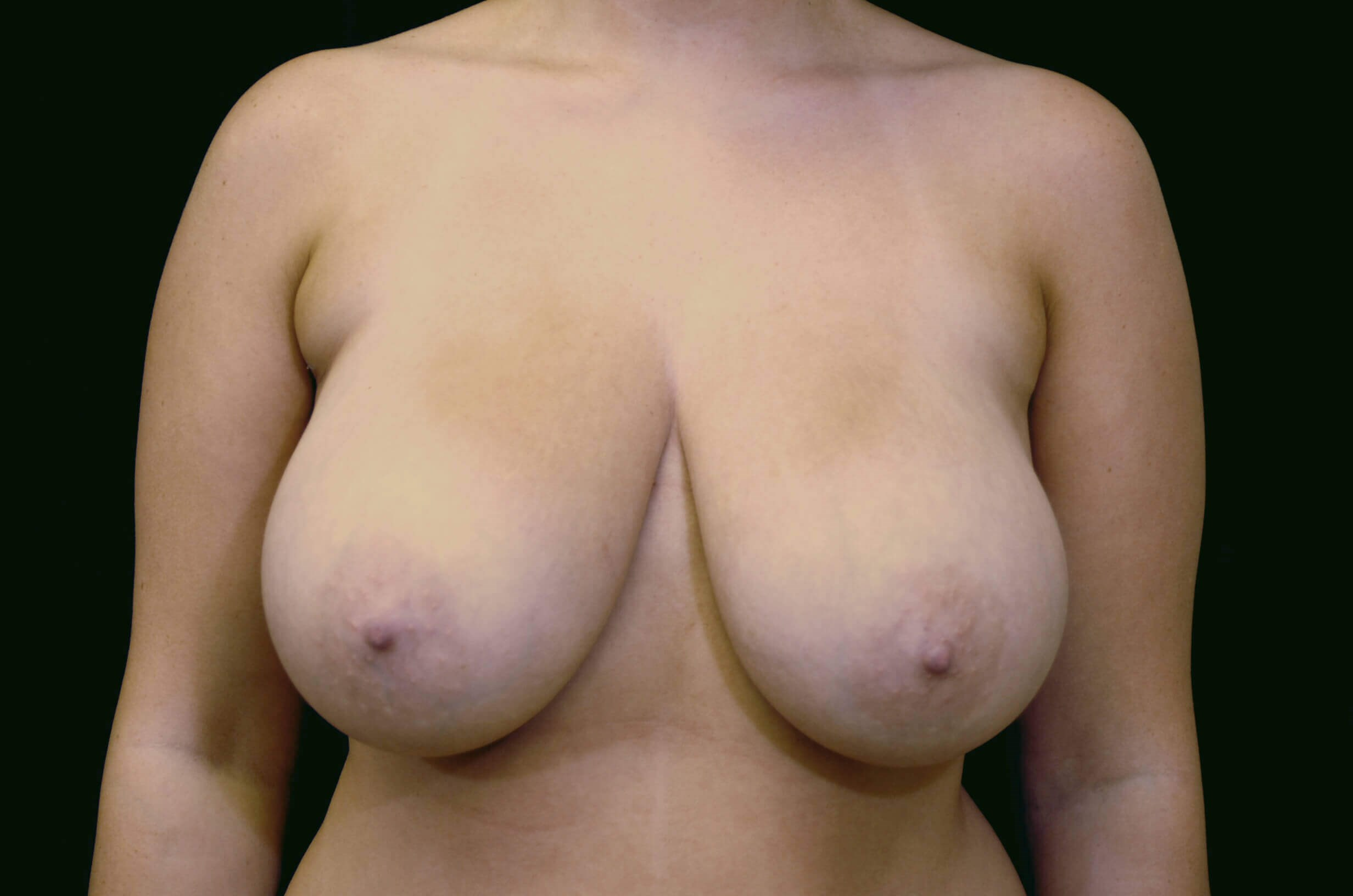 DALLAS, TEXAS WOMAN RELIEVES BACK PAIN WITH BREAST REDUCTION AND LIFT.