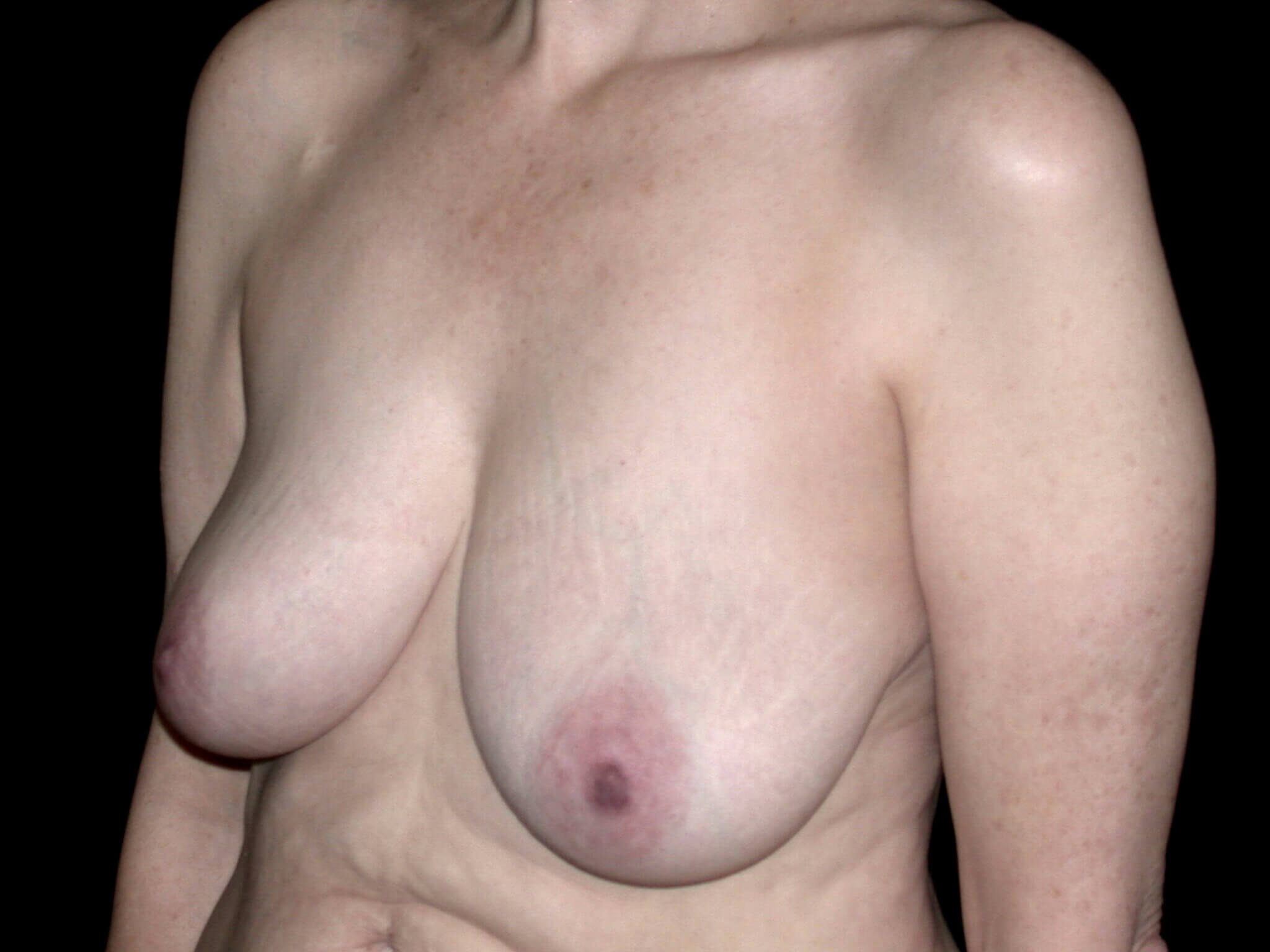DALLAS WOMAN HAS BREAST LIFT SURGERY