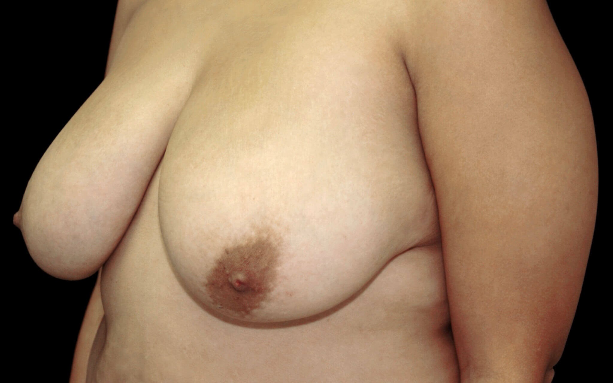 DALLAS WOMAN HAS BREAST LIFT SURGERY