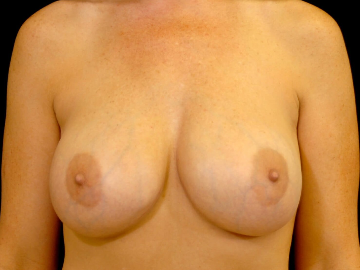 DALLAS, TEXAS WOMAN HAS BREAST IMPLANT REPLACEMENT AND BREAST LIFT SURGERY