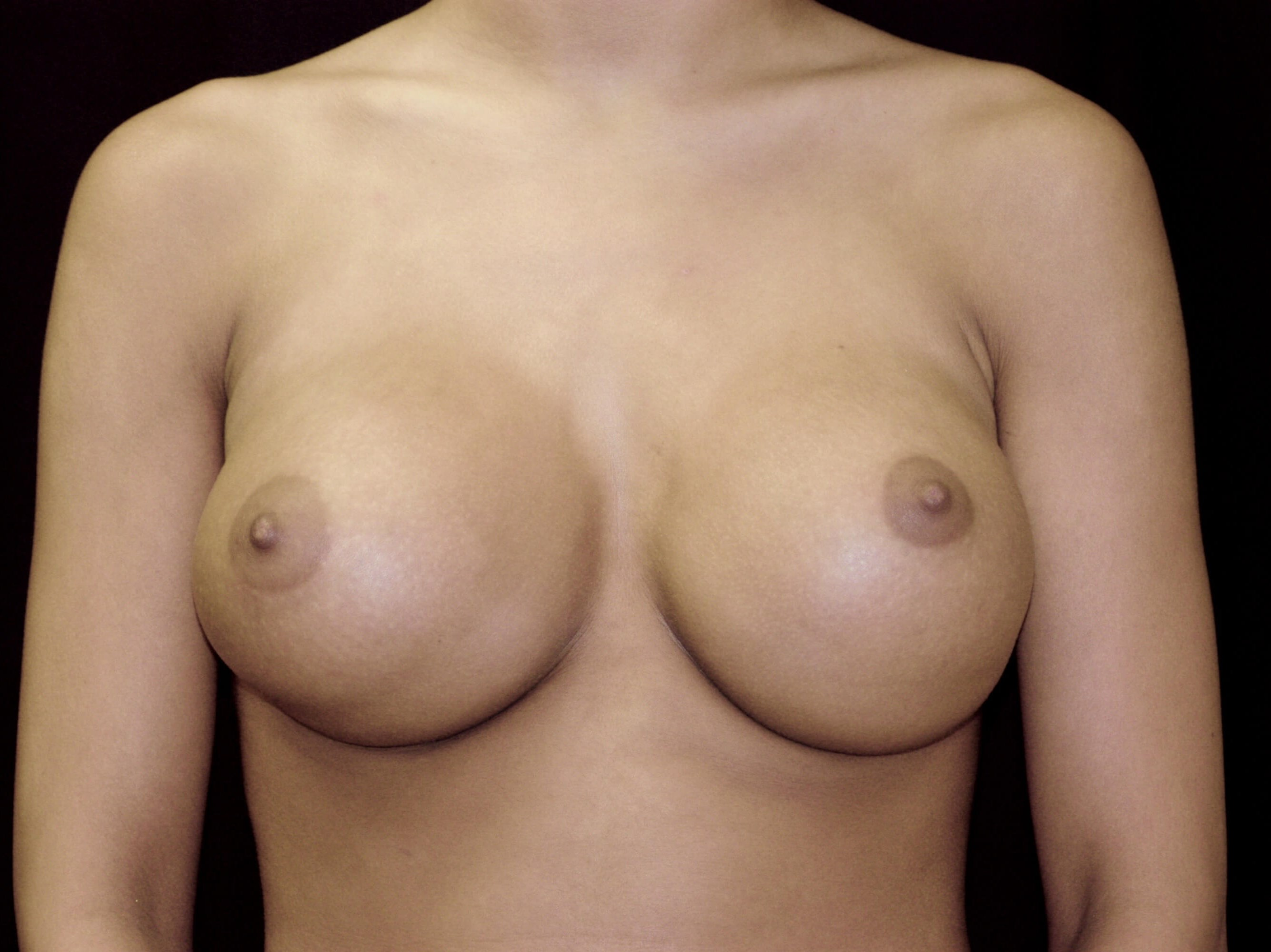 DALLAS WOMAN HAS DOUBLE BUBBLE BREAST IMPLANT CORRECTION
