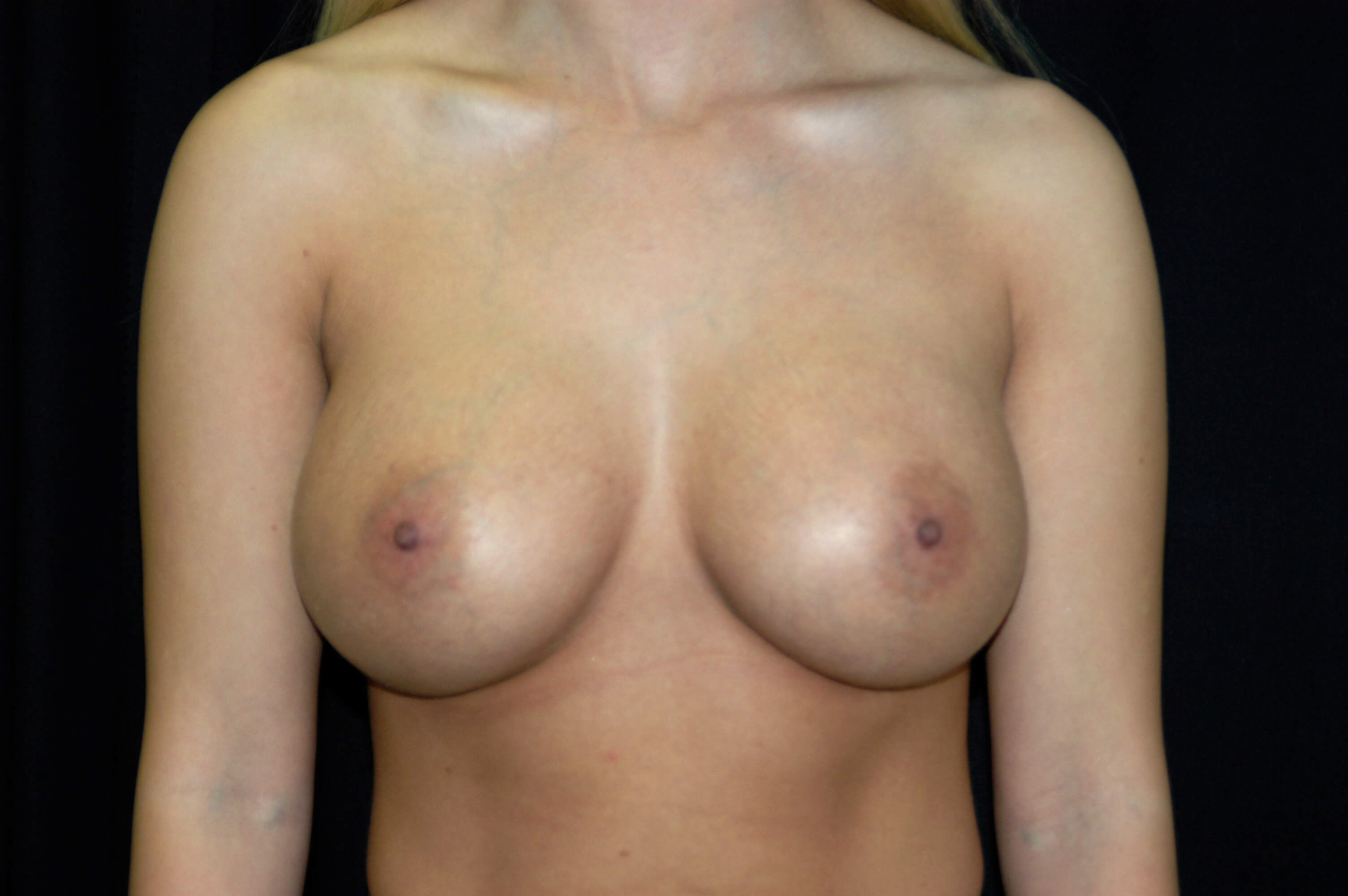 DALLAS WOMAN HAS BREAST IMPLANT REVISION TO ENHANCE FULLNESS/SHAPE OF BREAST