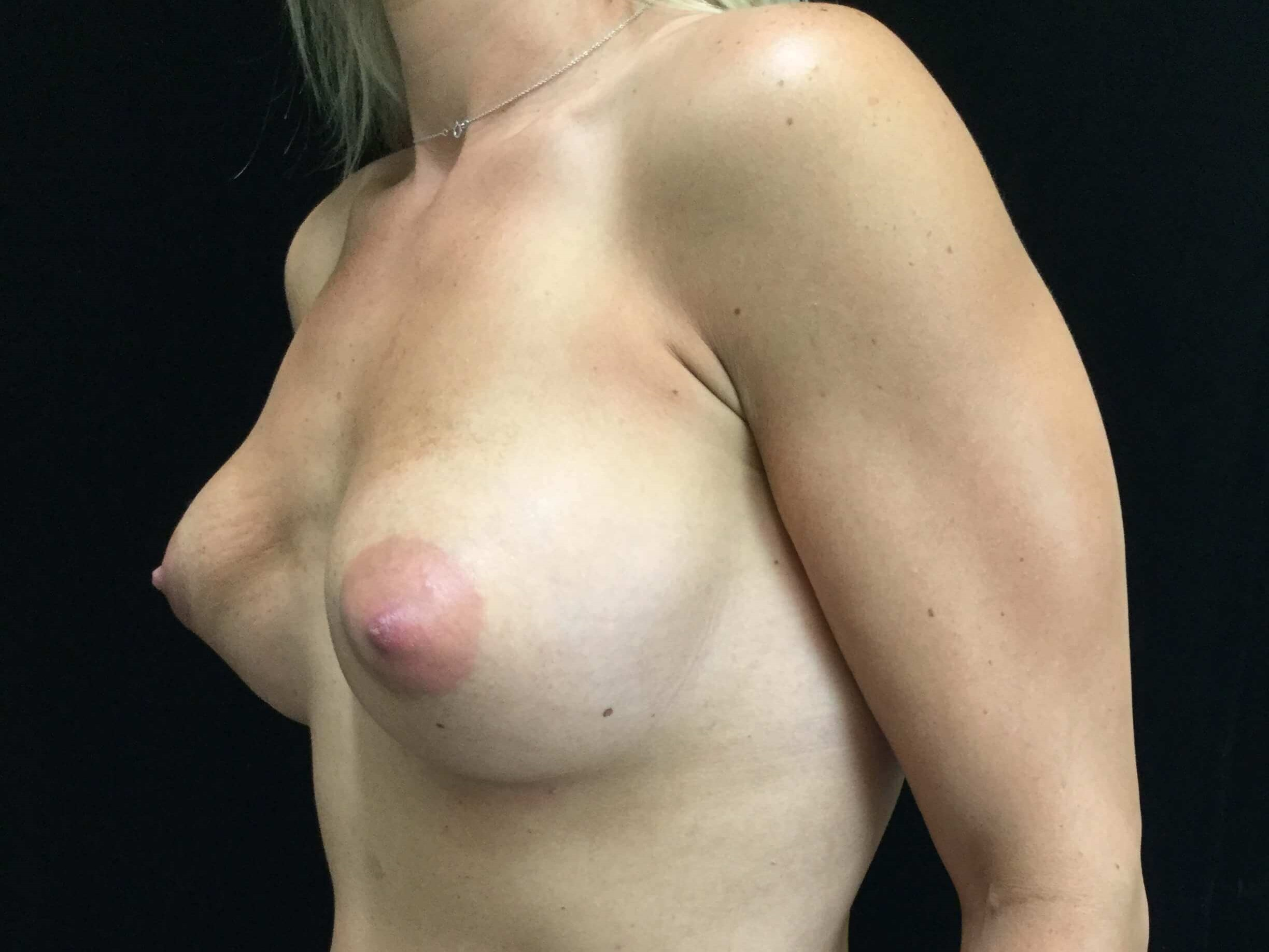 DALLAS WOMAN HAS BREAST AUGMENTATION REVISION AND BREAST IMPLANT REPLACEMENT
