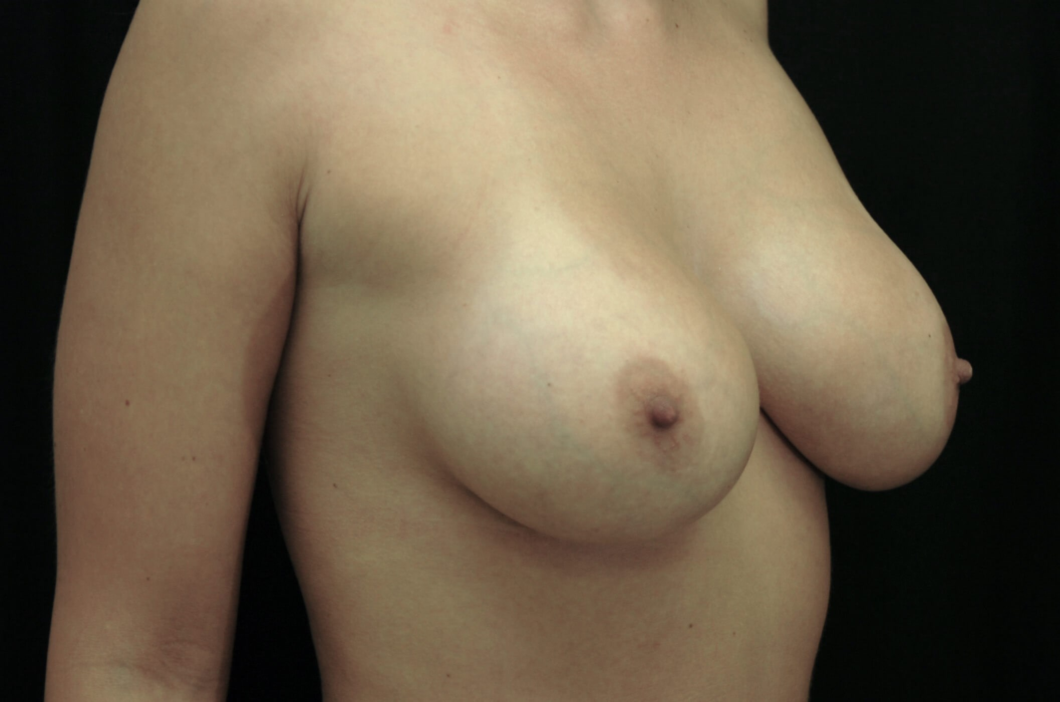DALLAS, TEXAS WOMAN HAS BREAST AUGMENTATION REVISION & BREAST IMPLANTS REPLACED