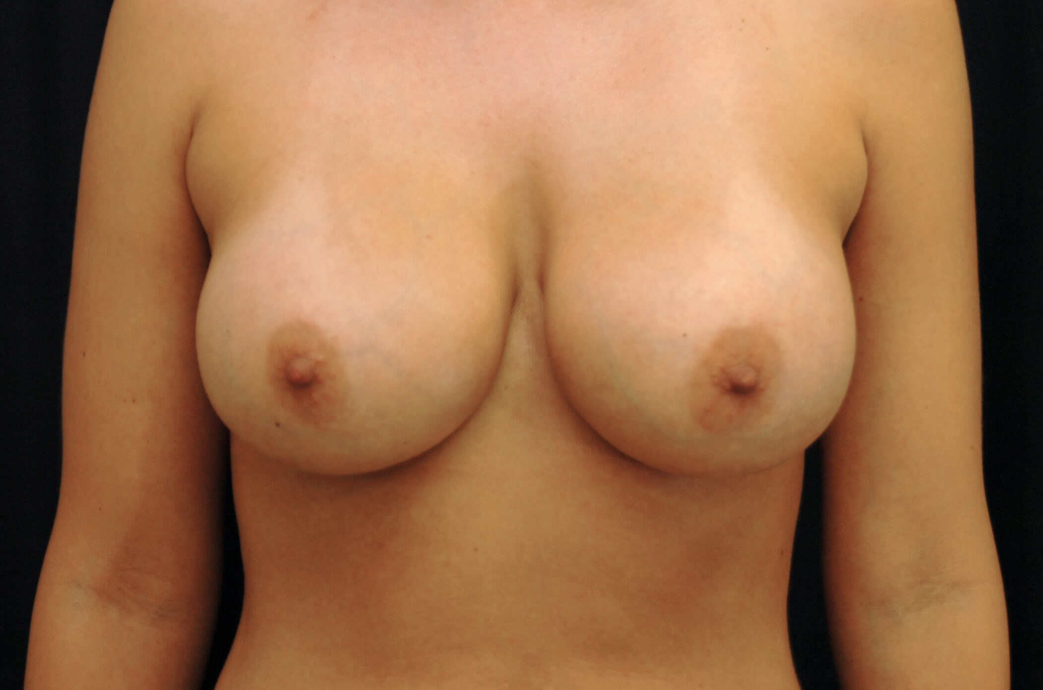 WOMAN IN DALLAS TEXAS HAS BREAST AUGMENTATION REVISION WITH NEW BREAST IMPLANTS