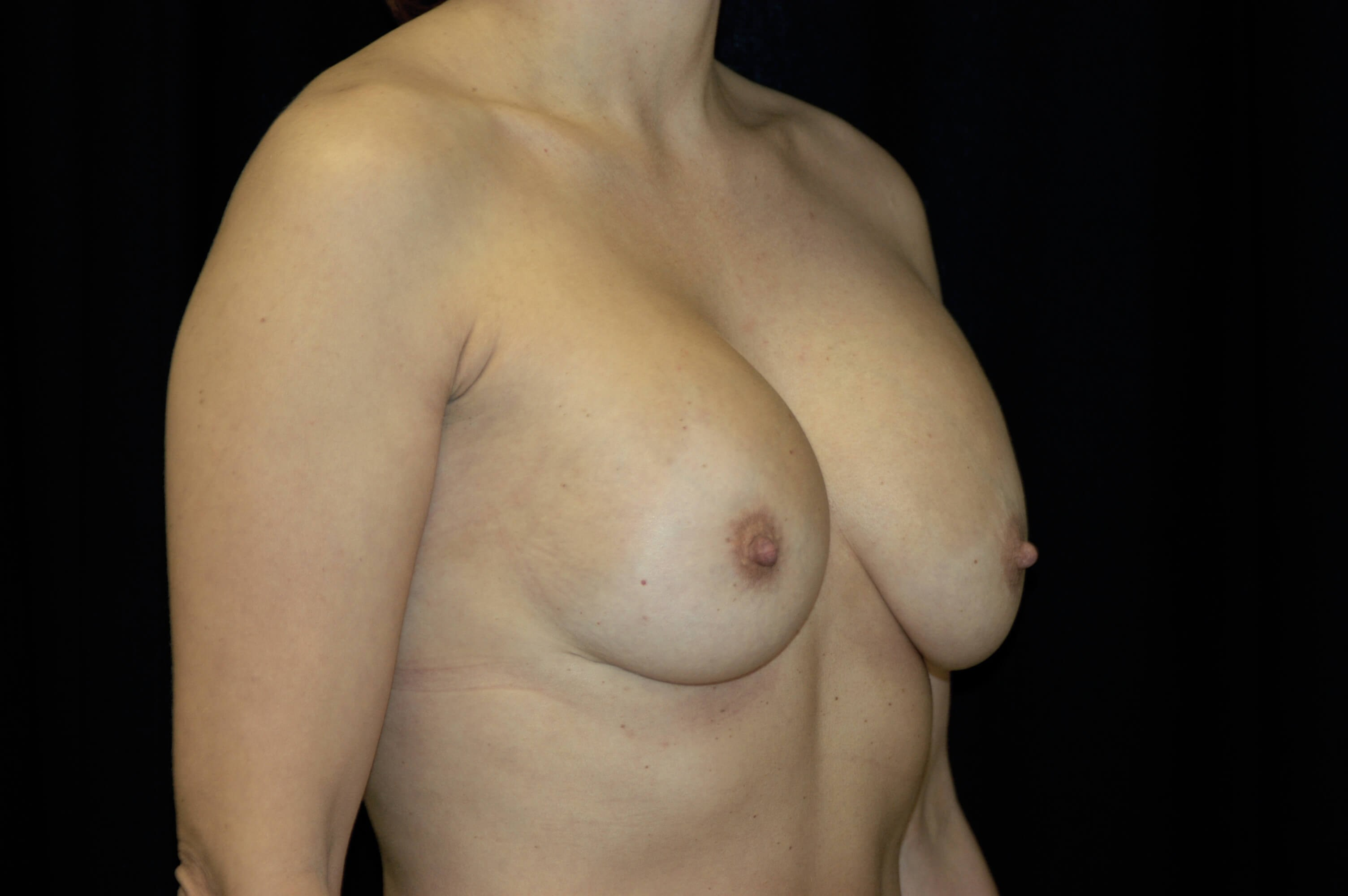 WOMAN IN DALLAS HAS BREAST AUGMENTATION REVISION SURGERY