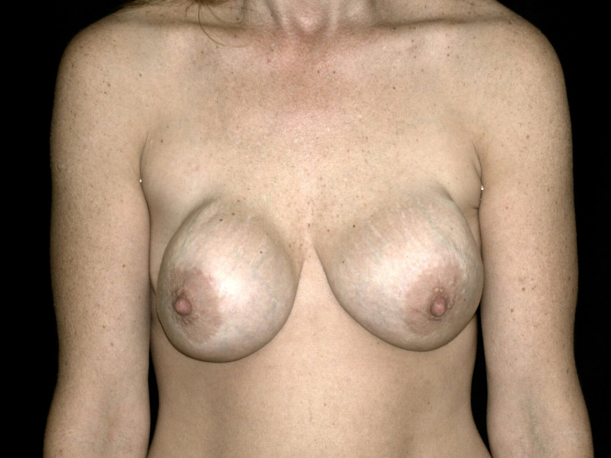 WOMAN IN DALLAS, TEXAS HAS BREAST AUGMENTATION REVISION REPLACEMENT