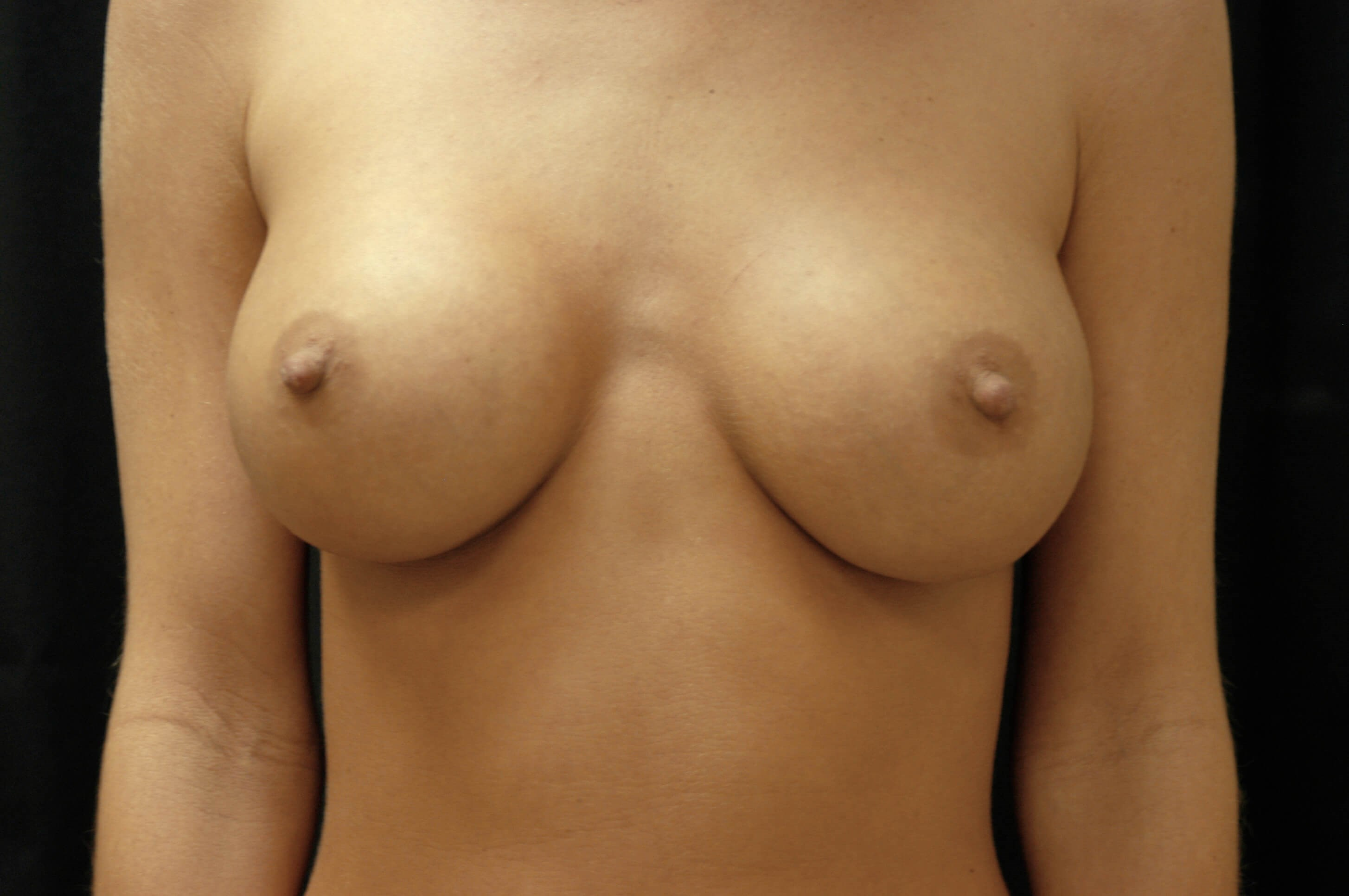 DALLAS WOMAN HAS BREAST IMPLANT REPLACEMENT SURGERY