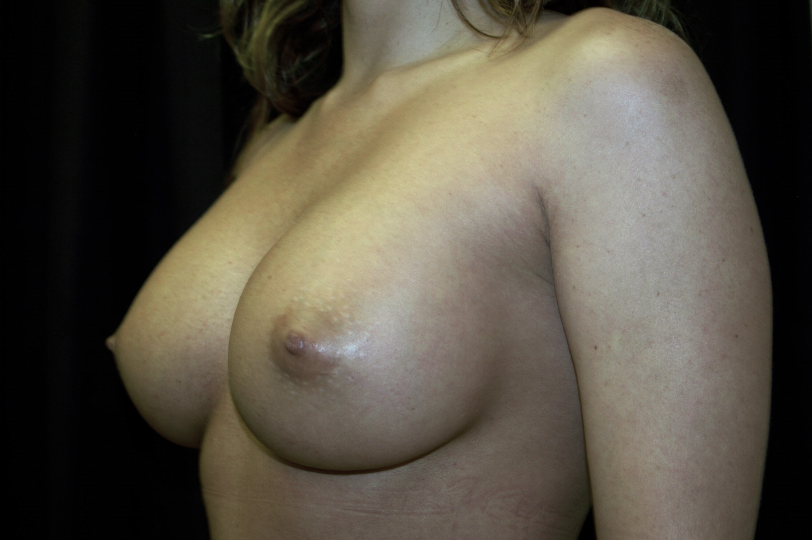 WOMAN IN DALLAS, TEXAS HAS BREAST AUGMENTATION REVISION WITH NEW BREAST IMPLANTS