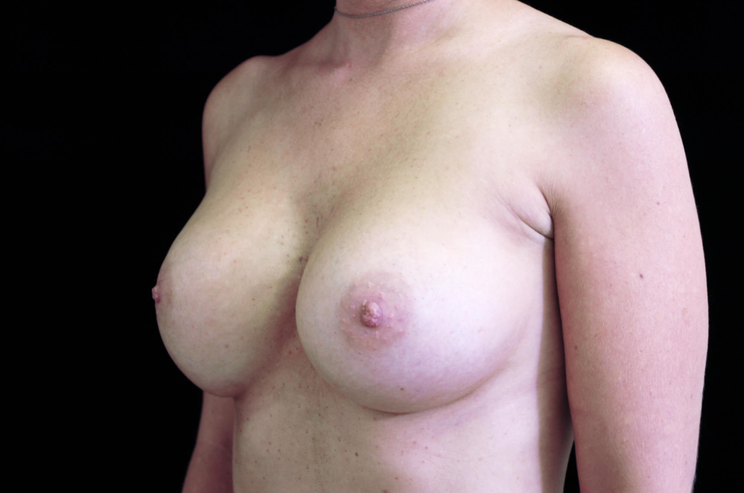 DALLAS, TEXAS WOMAN HAS BREAST REVISION SURGERY