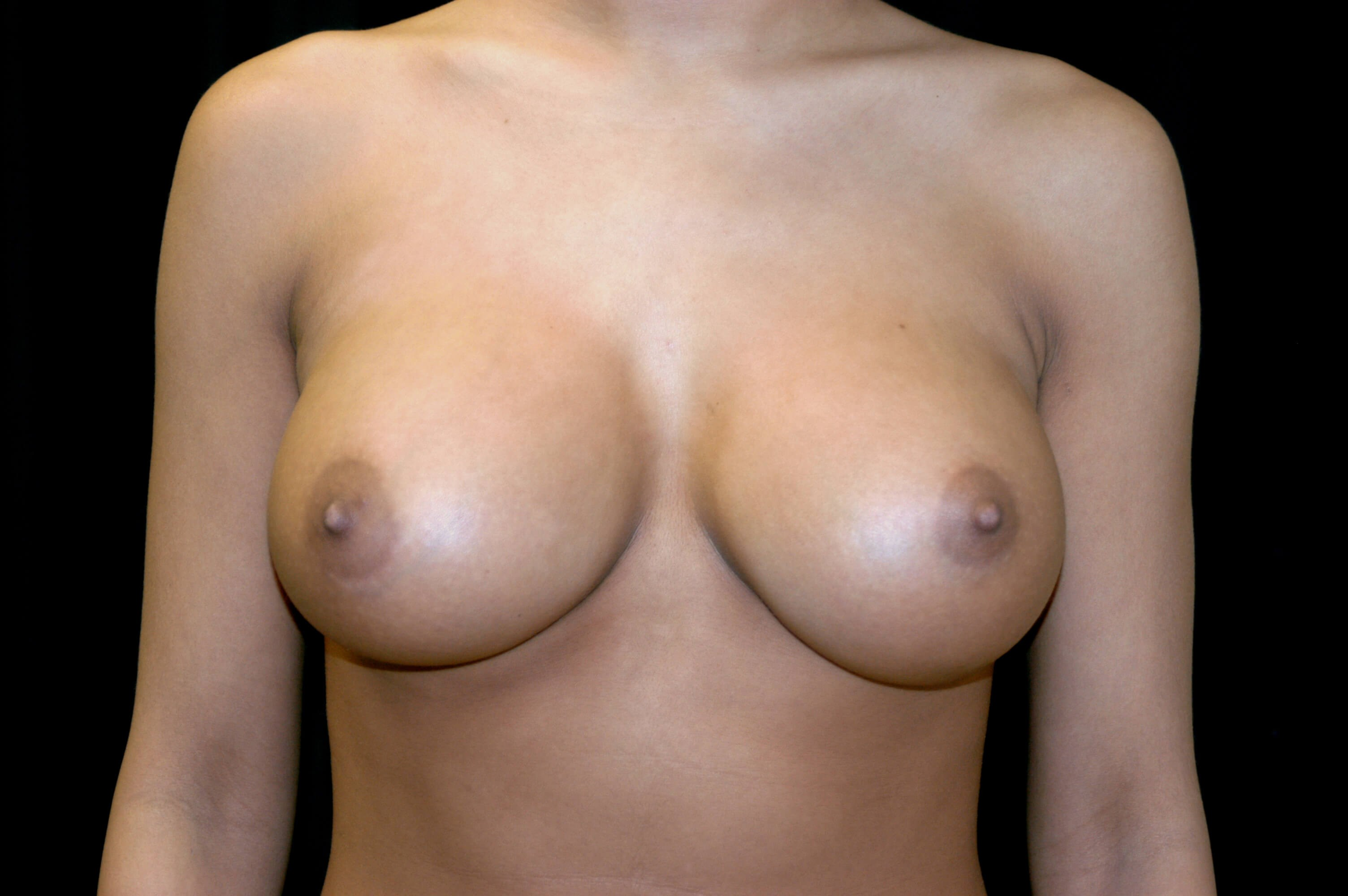 DALLAS TEXAS WOMAN HAS BREAST REVISION SURGERY FOR DOUBLE BUBBLE CORRECTION