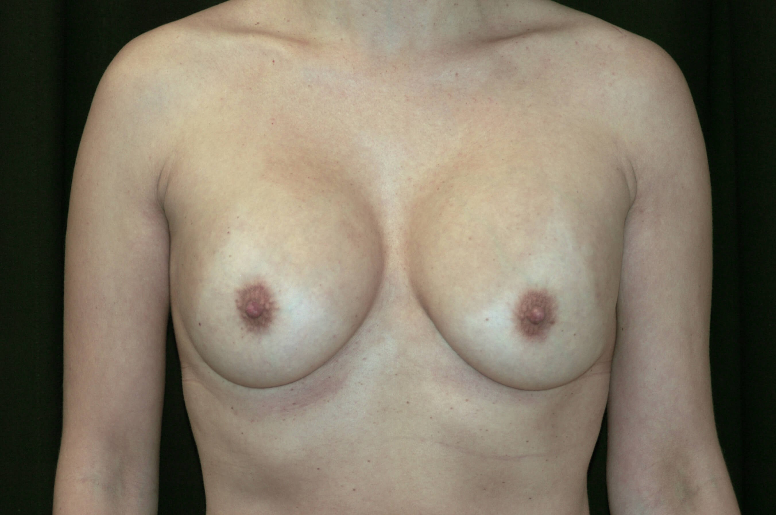 DALLAS TEXAS WOMAN HAS BREAST REVISION SURGERY
