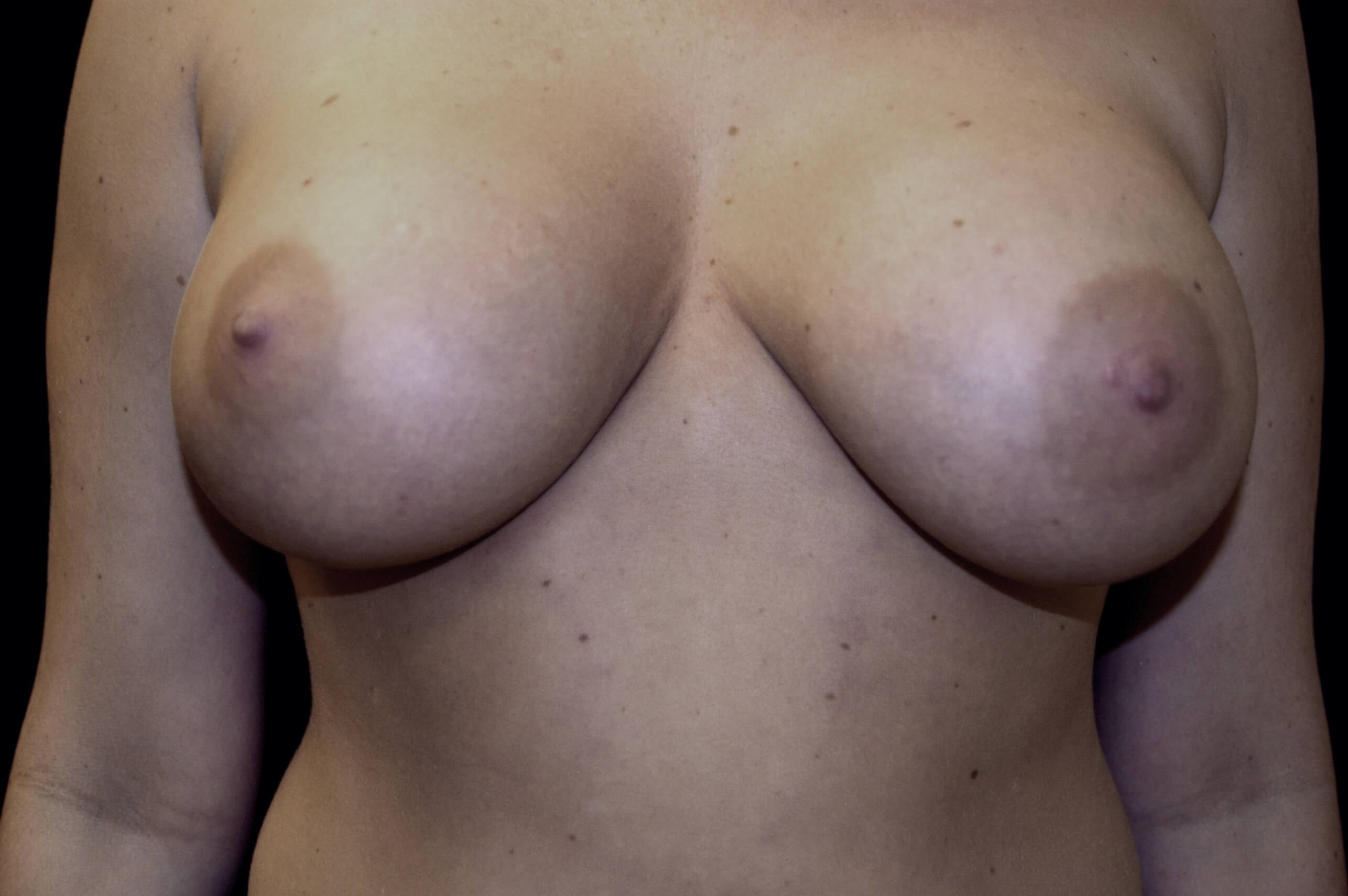 PLANO WOMAN HAS BREAST IMPLANT REPLACEMENT FOR RUPTURED BREAST IMPLANT.