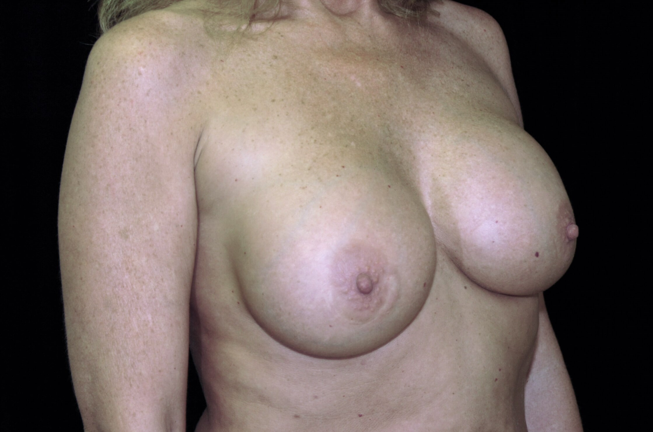 PLANO, TEXAS WOMAN HAS BREAST REVISION SURGERY