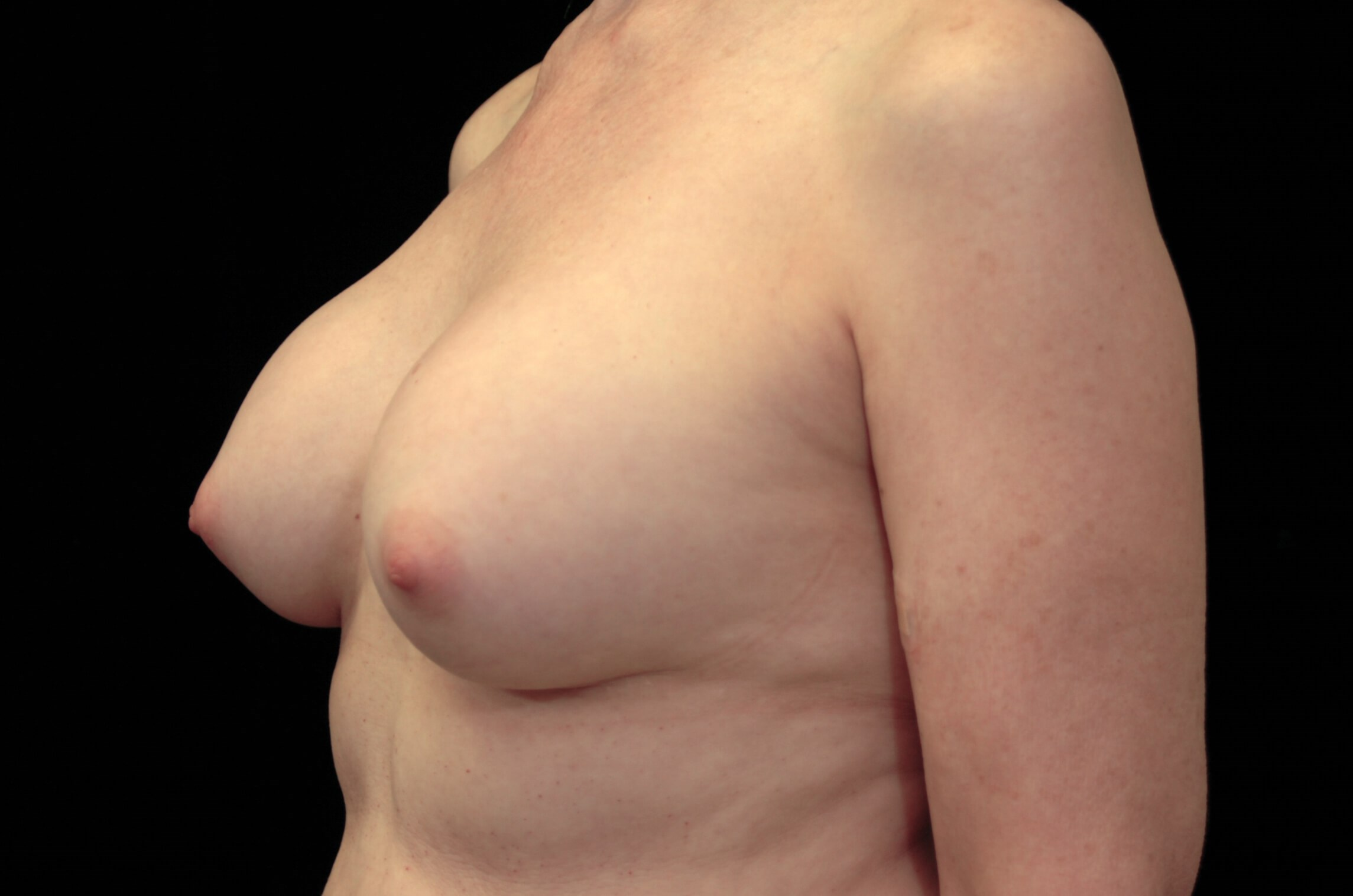 DALLAS, TEXAS WOMAN HAS BREAST REVISION SURGERY