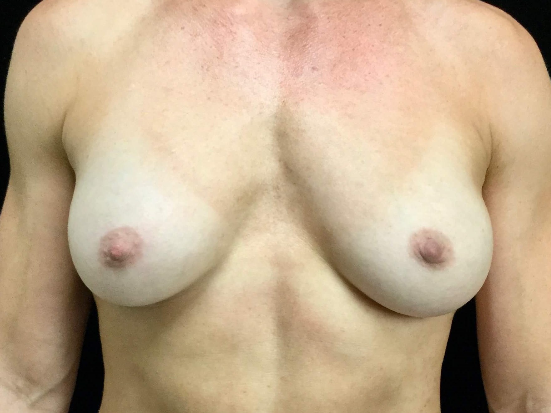 DALLAS, TEXAS WOMAN HAS BREAST IMPLANT REPLACEMENT SURGERY