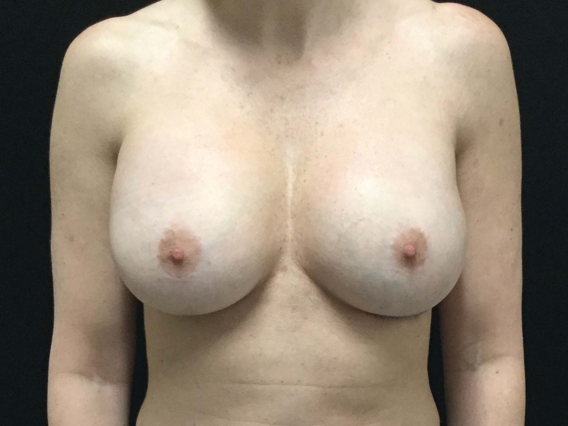 DALLAS, TEXAS WOMAN HAS BREAST IMPLANT REVISION SURGERY WITH SILICONE IMPLANTS
