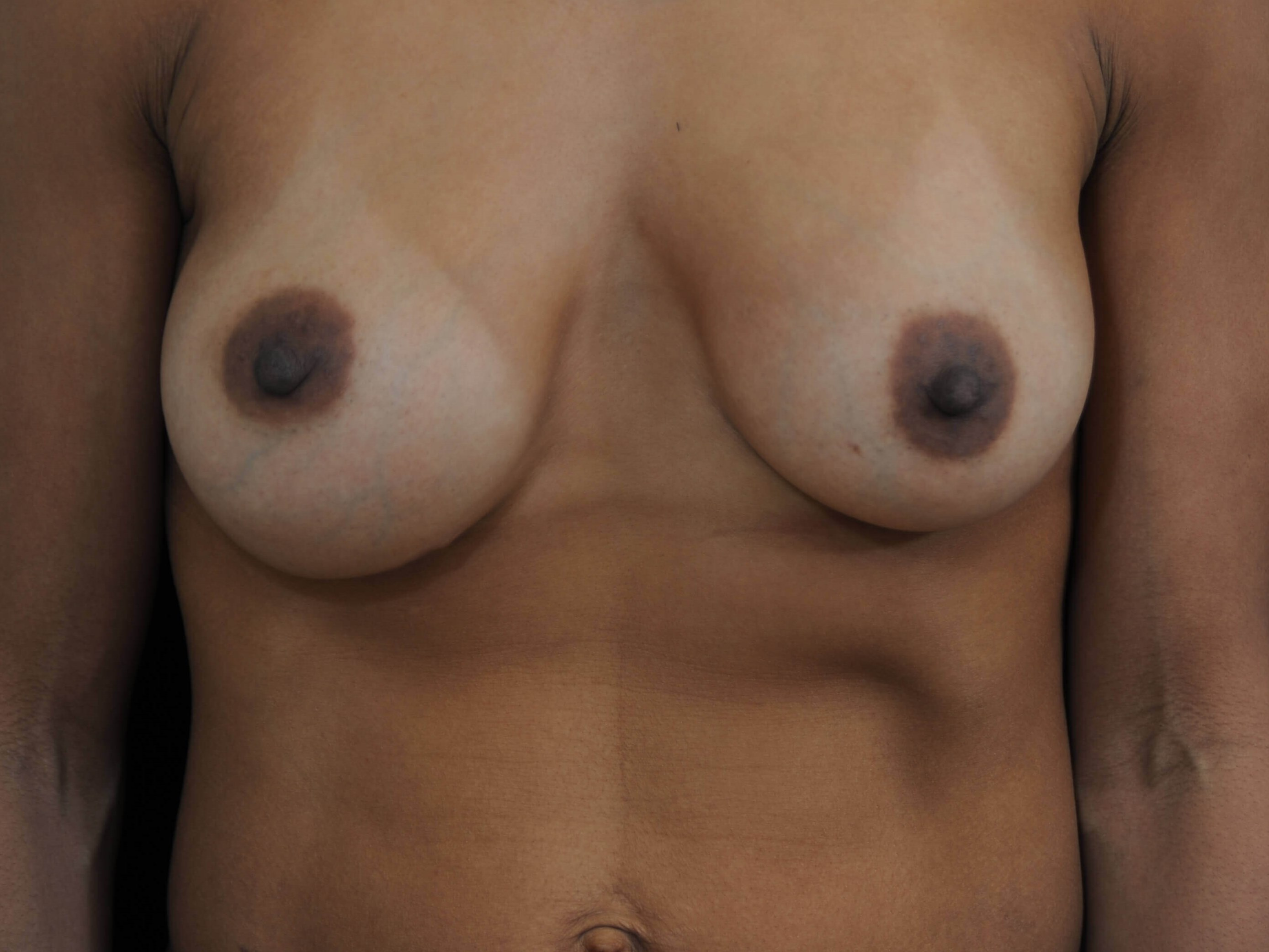 DALLAS WOMAN HAS RUPTURED BREAST IMPLANT, EXCHANGES SALINE FOR SILICONE GEL
