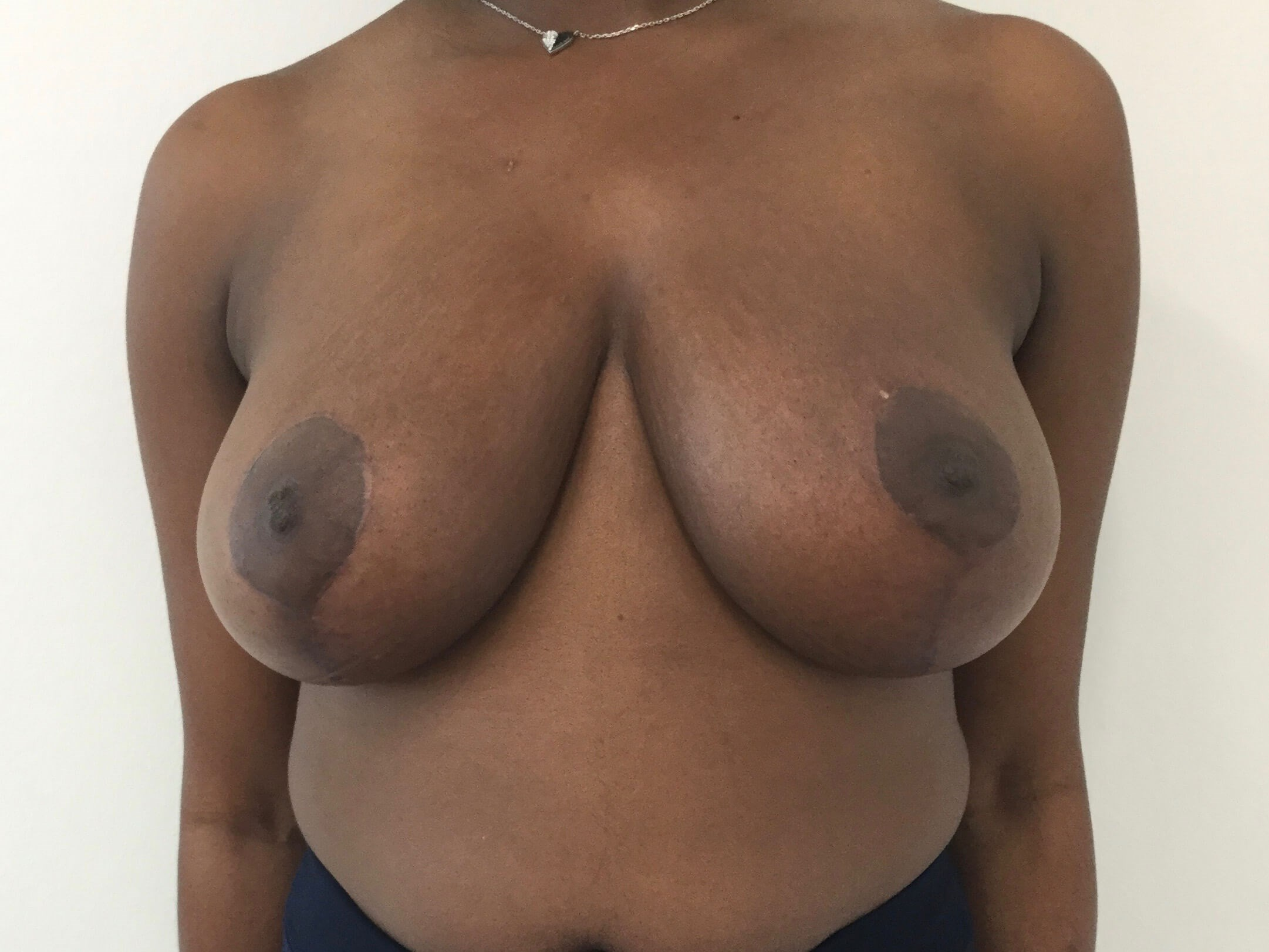 DALLAS WOMAN HAS BREAST REDUCTION TO REDUCE BACK/NECK PAIN