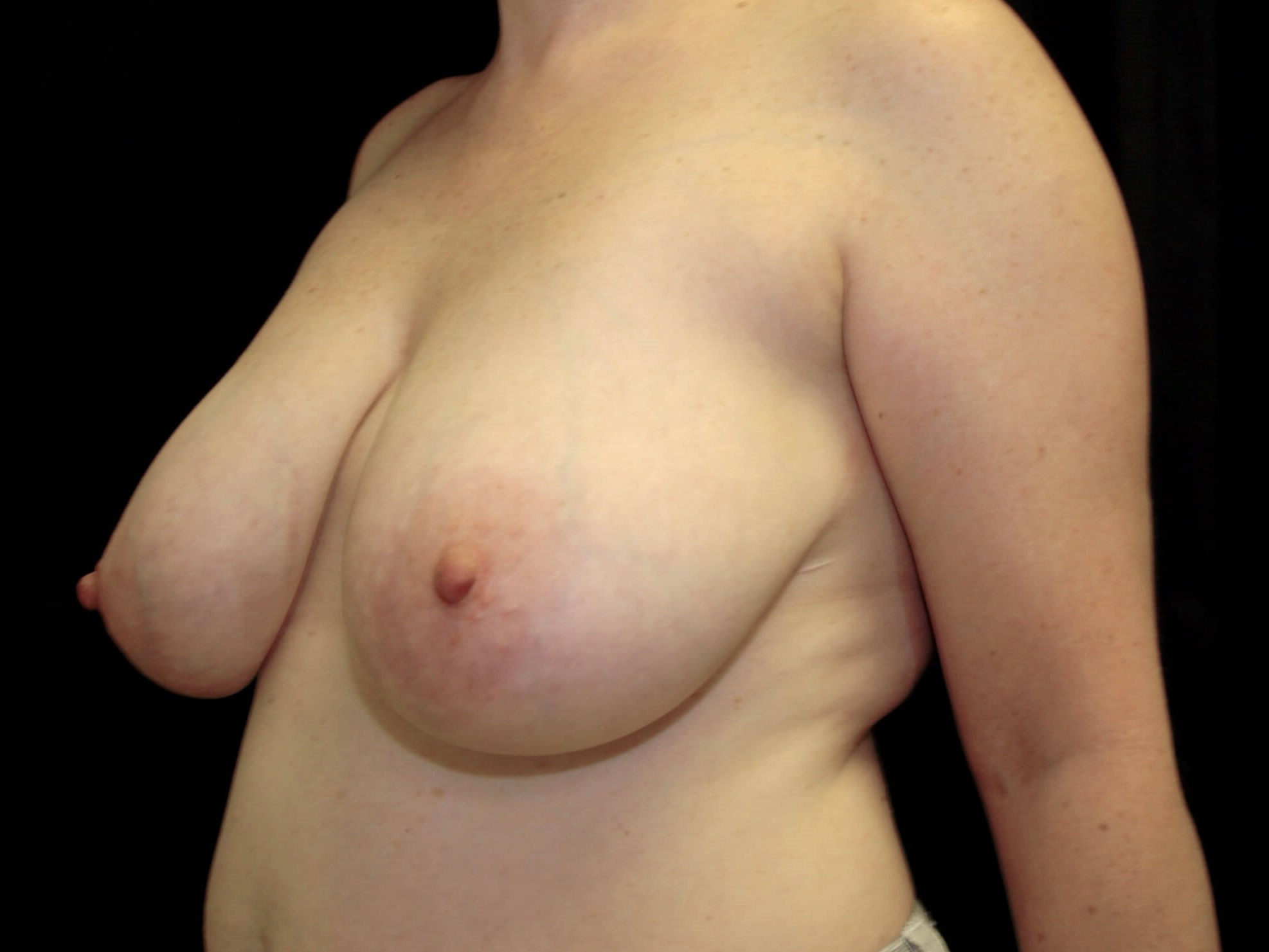 PLANO, TEXAS WOMAN HAS BREAST REDUCTION WITH SILICONE GEL IMPLANTS