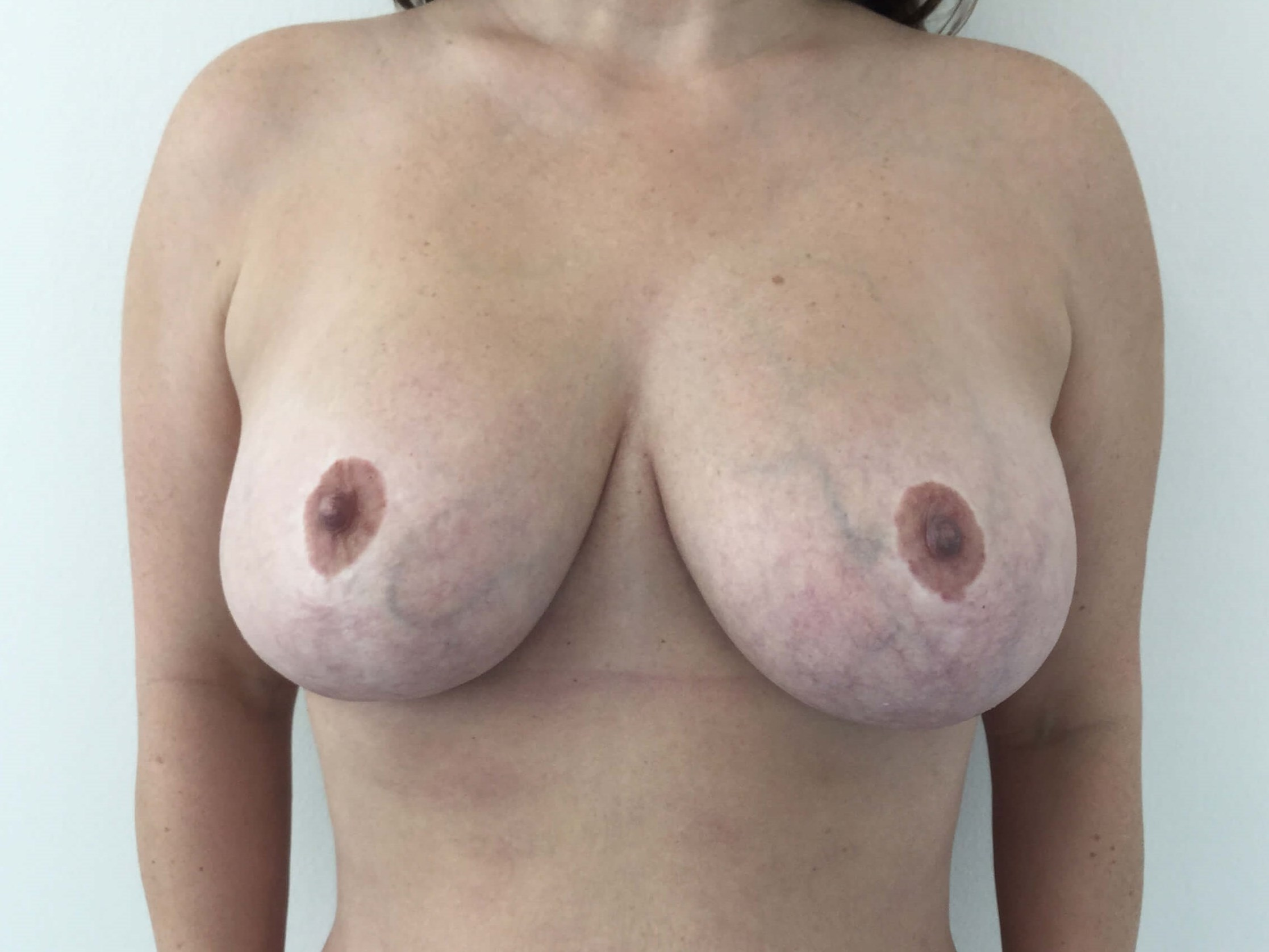 DALLAS TEXAS WOMAN HAS BREAST REDUCTION SURGERY