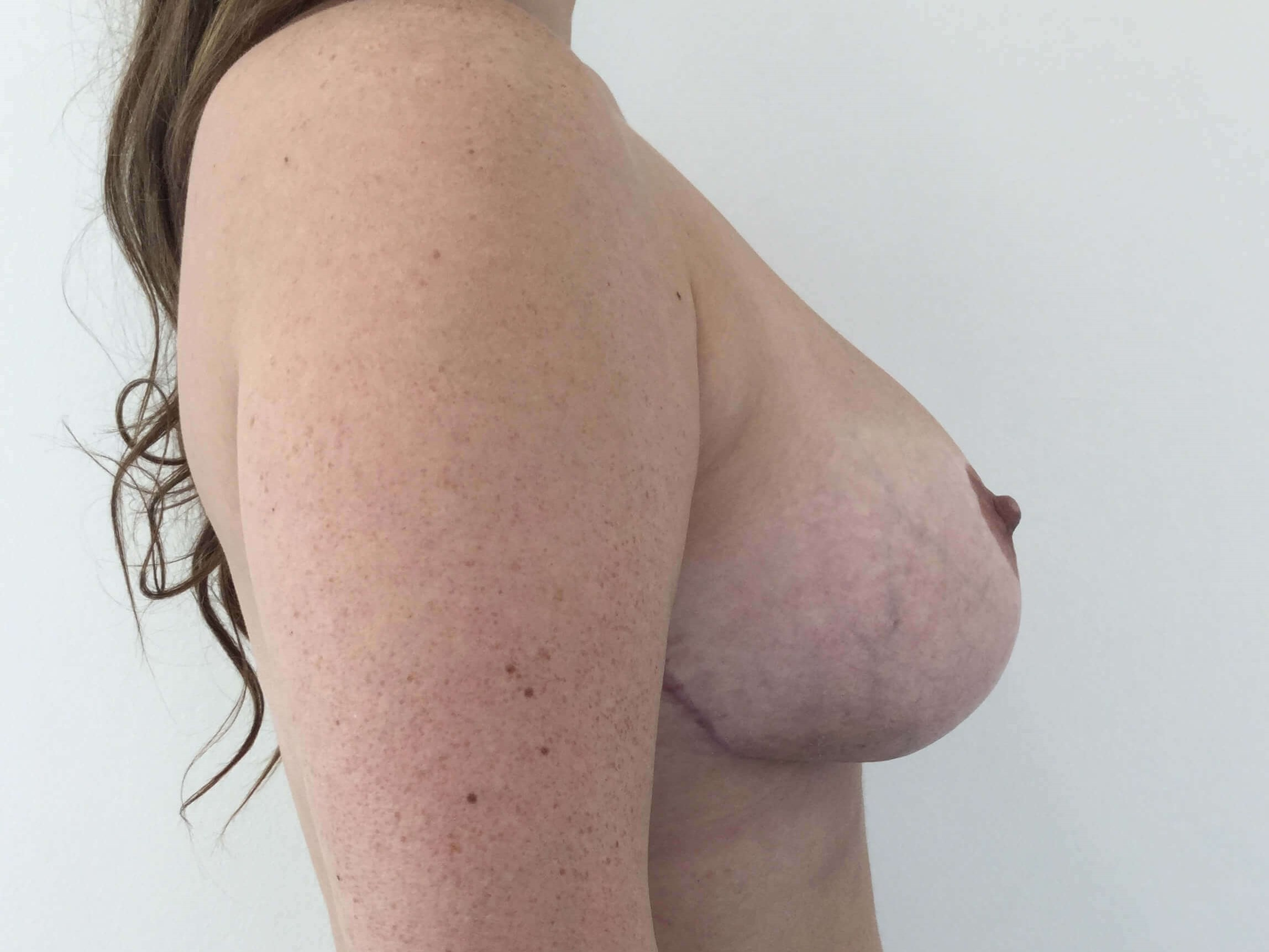 DALLAS TEXAS WOMAN HAS BREAST REDUCTION SURGERY