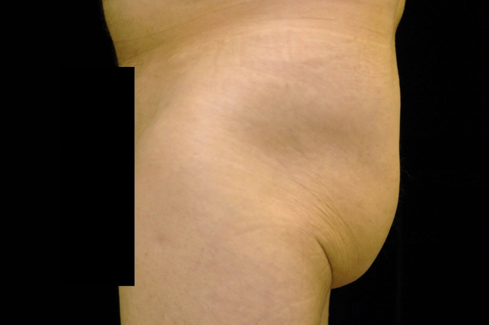 DALLAS MAN HAS BUTTOCK AUGMENTATION AND LIPOSUCTION SURGERY