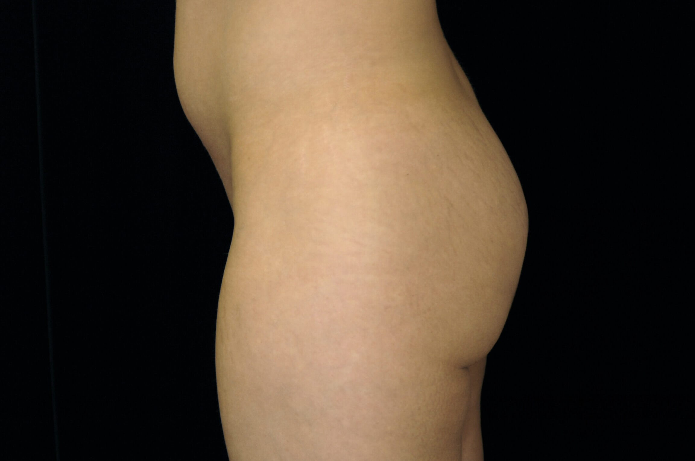 DALLAS WOMAN HAS BUTTOCK AUGMENTATION WITH IMPLANTS