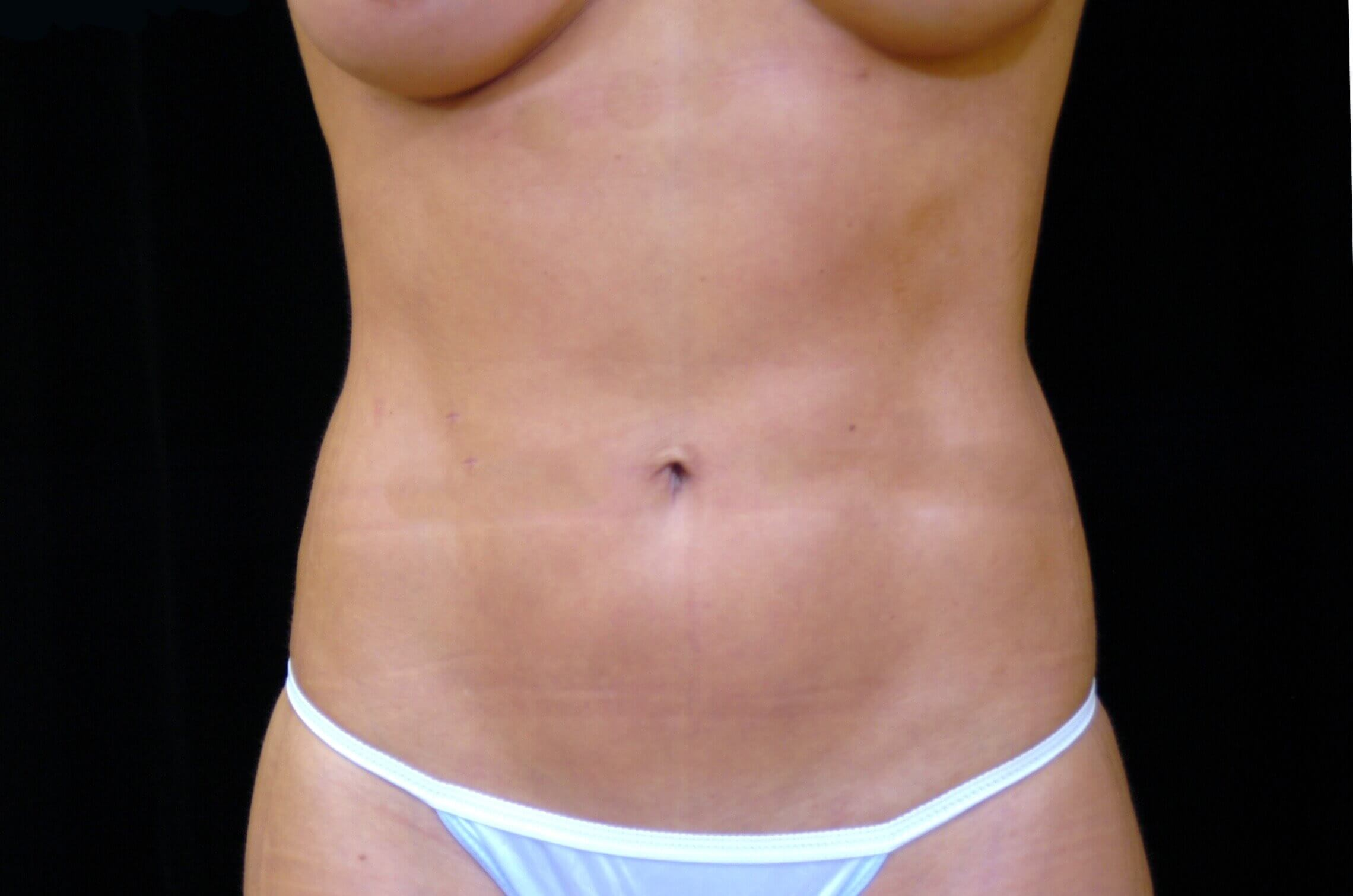 DALLAS, TEXAS WOMAN HAS HI-DEF LIPOSUCTION TO ABS AND LOVEHANDLES