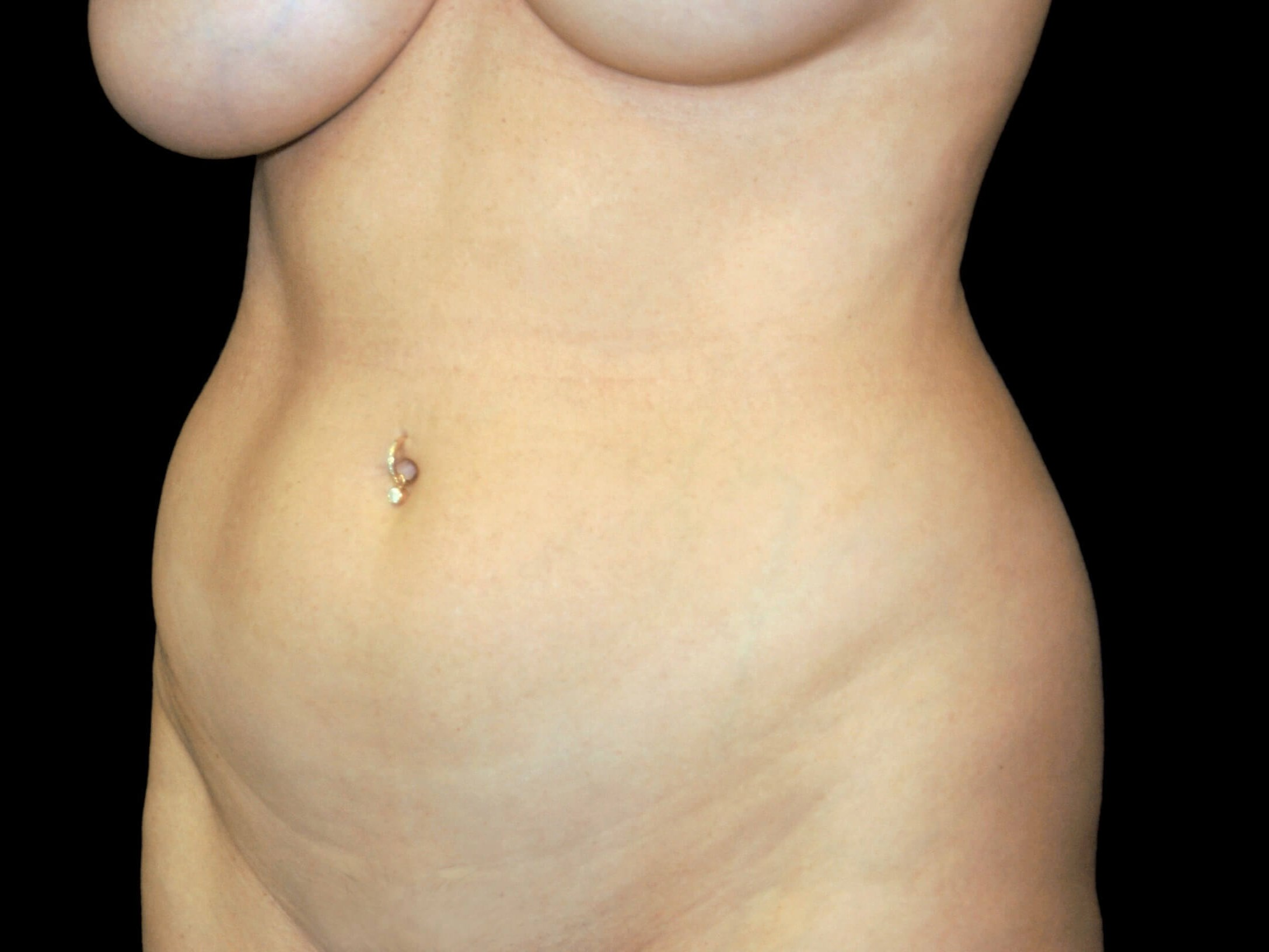 ALLEN WOMAN HAS VASER HIGH-DEFINITION LIPOSUCTION SURGERY