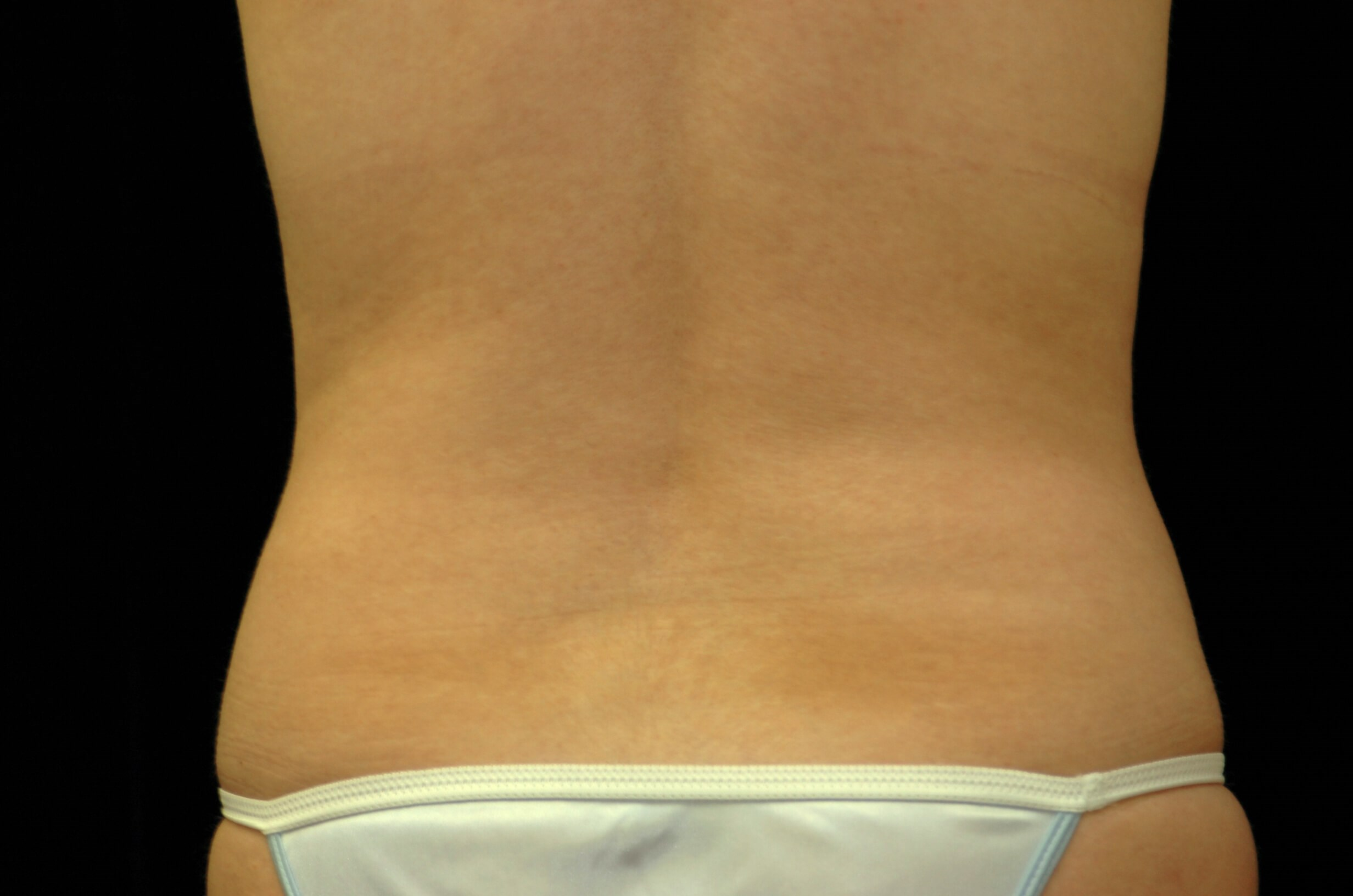 BODY CONTOURING TO ABDOMEN AND FLANKS FOR DALLAS, TEXAS WOMAN