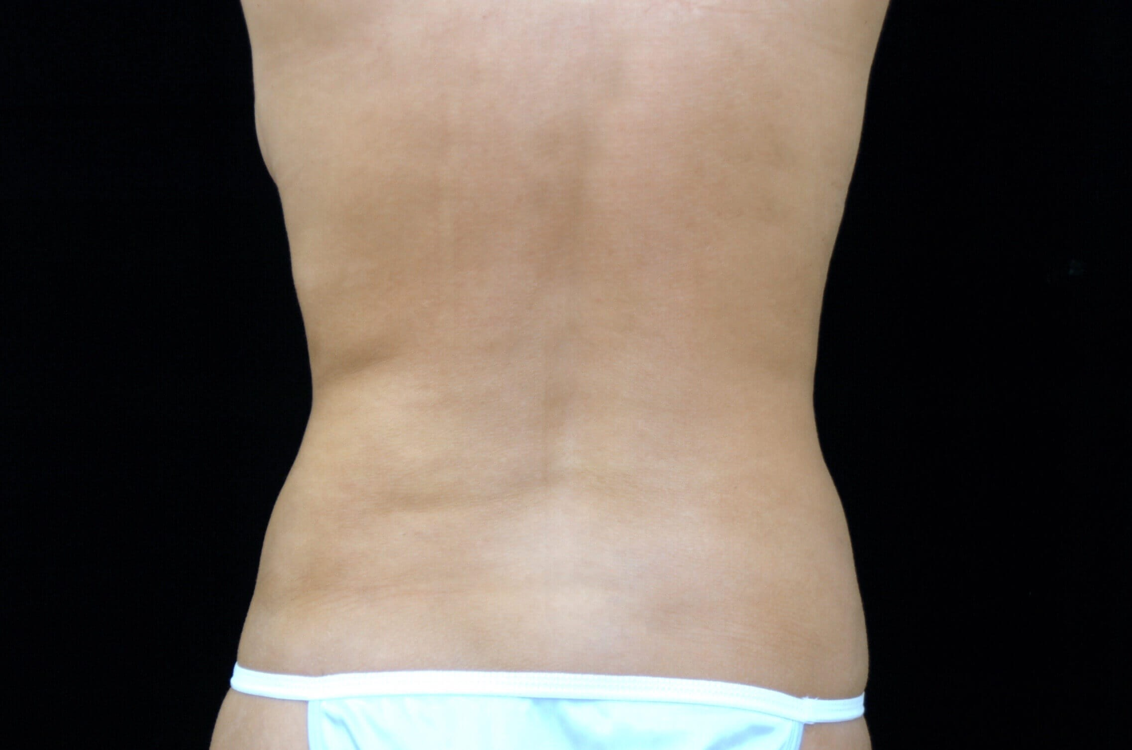 DALLAS, TEXAS WOMAN HAS LIPOSUCTION TO FLANKS AND BACK FOR BODY CONTOURING