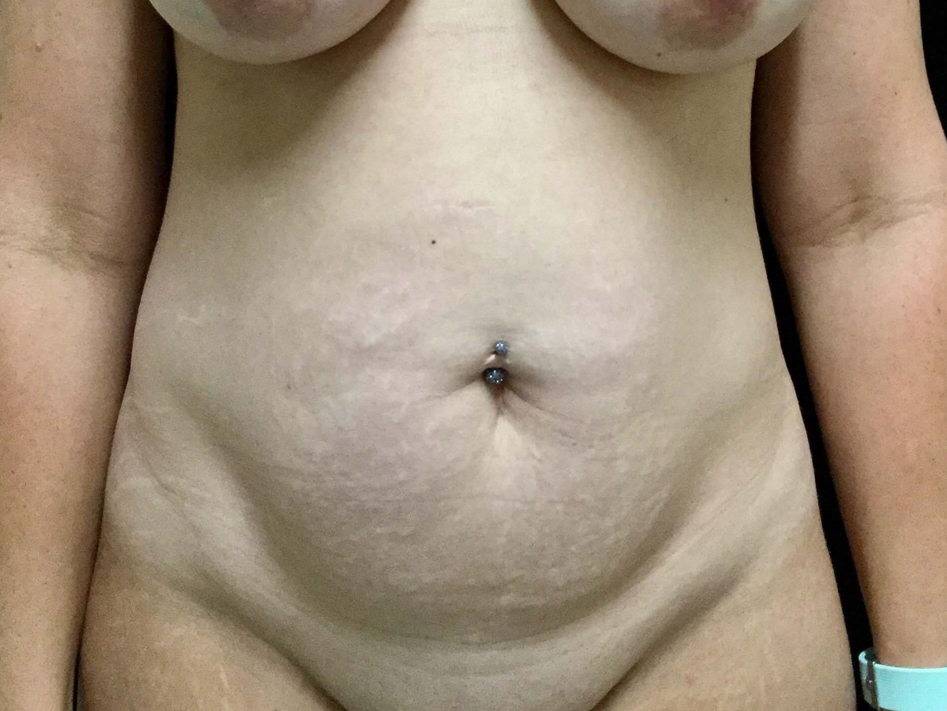 DALLAS, TEXAS WOMAN HAS TUMMY TUCK AND HI-DEF LIPO TO ABDOMEN
