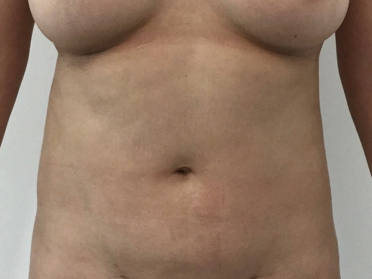 DALLAS WOMAN HAS VASER® HIGH DEFINITION LIPOSUCTION TO ABDOMEN AND LOVEHANDLES