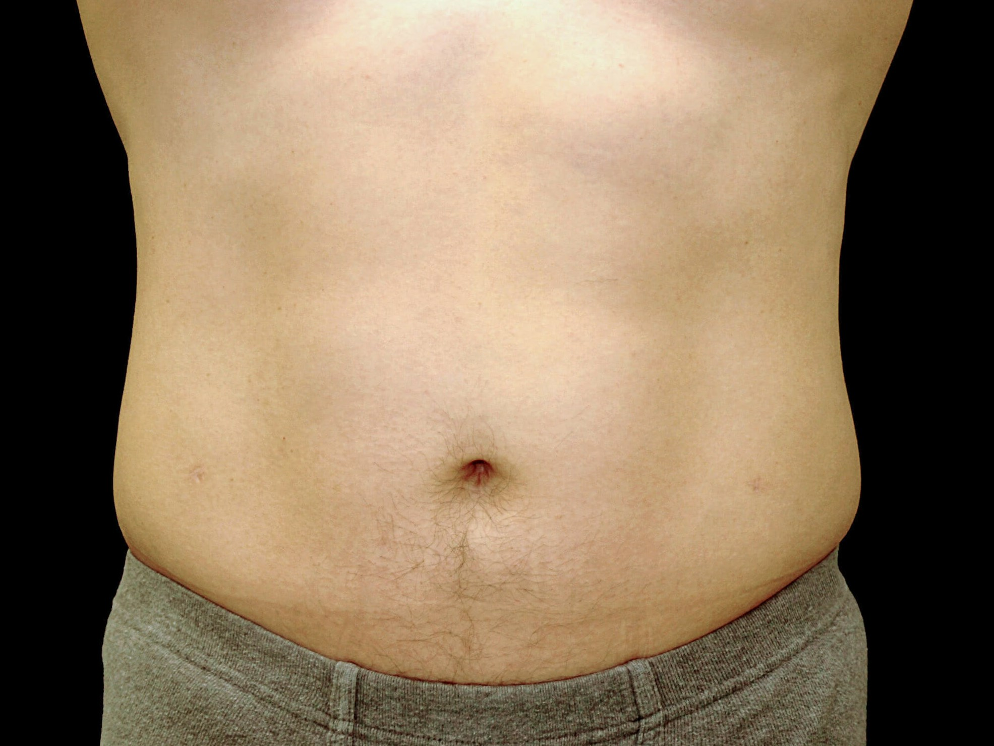 DALLAS MAN HAS VASER HIGH-DEFINITION LIPOSUCTION SURGERY