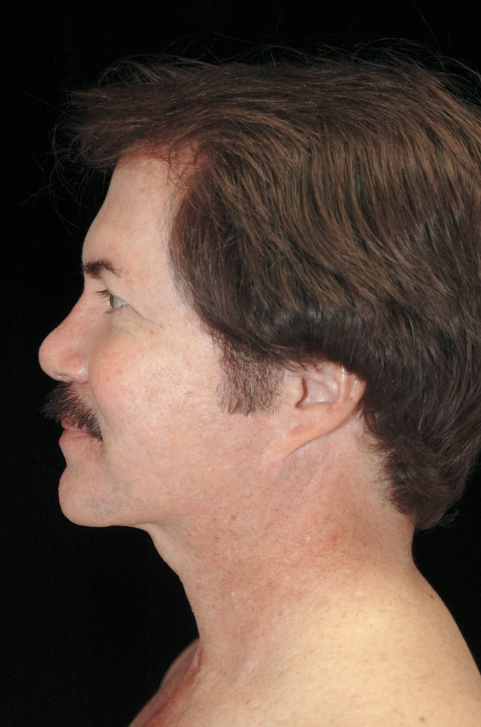 DALLAS MAN ENHANCES JAWLINE WITH VASER LIPOSUCTION SURGERY