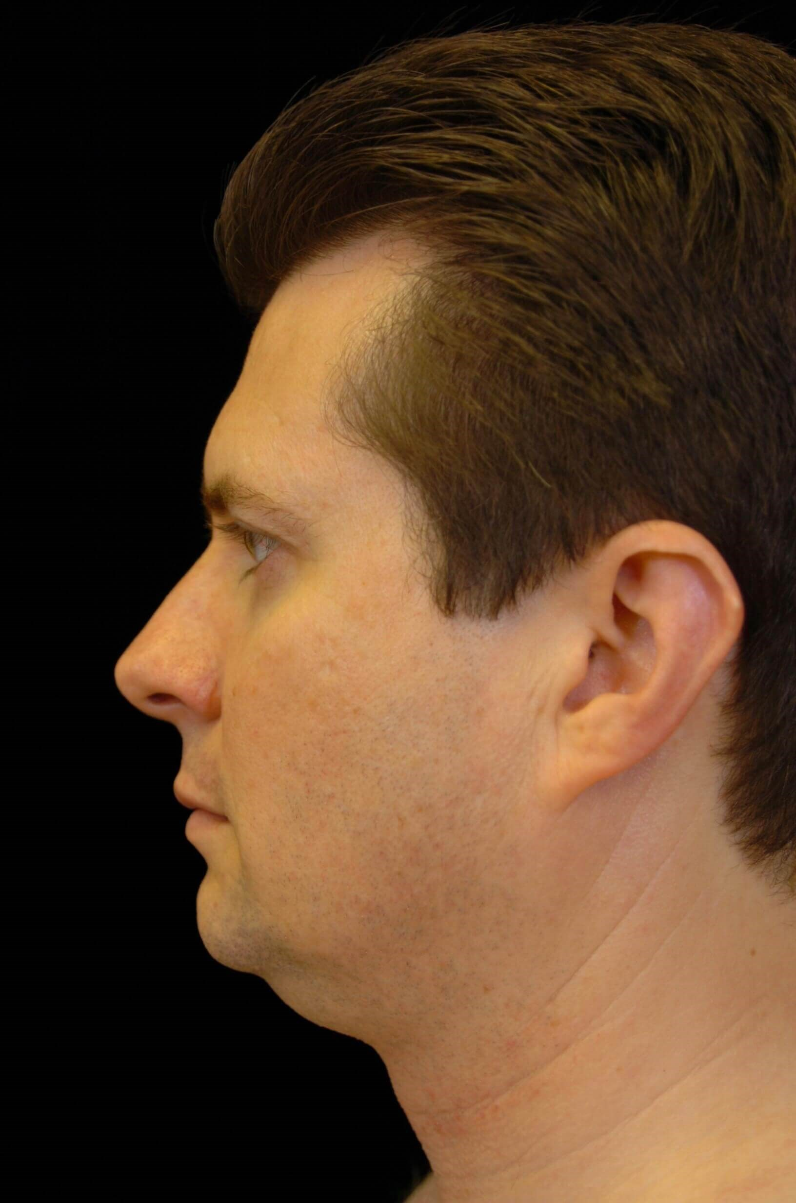 PLANO MAN IMPROVES PROFILE WITH VASER LIPOSUCTION SURGERY