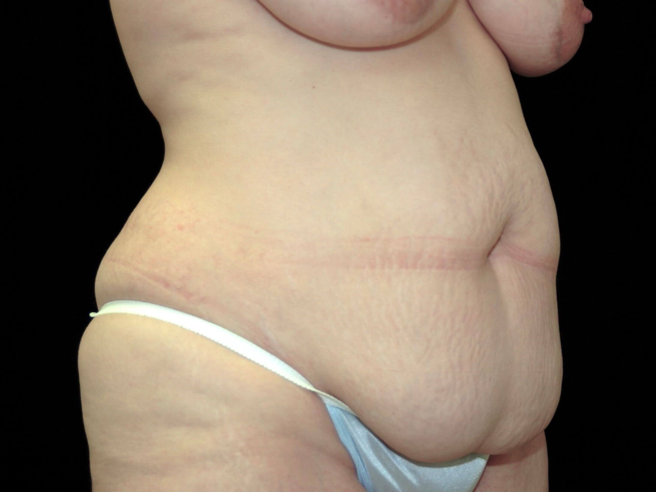 PLANO, TEXAS WOMAN HAS TUMMY TUCK WITH LIPOSUCTION TO LOVE-HANDLES