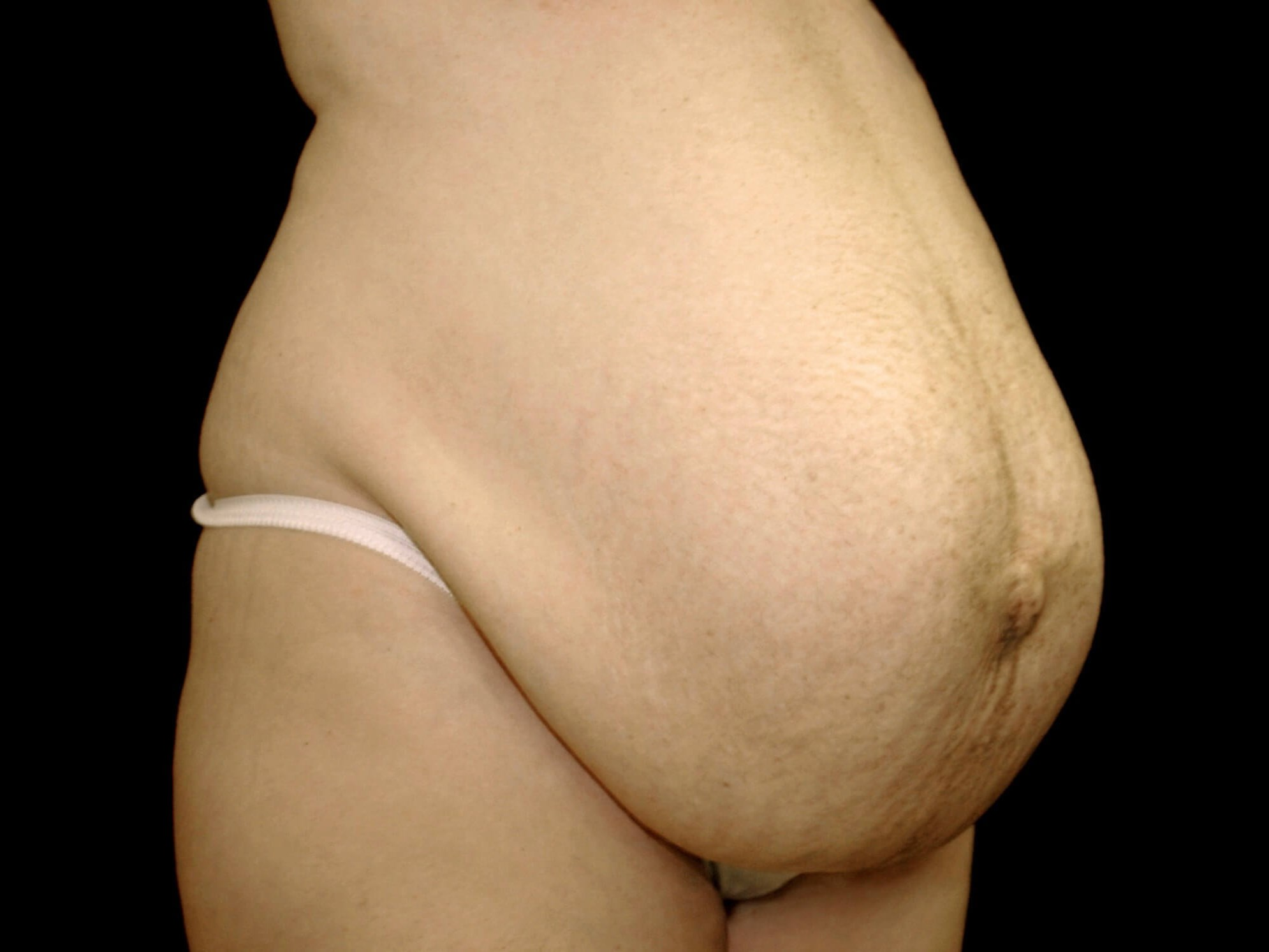 FRISCO, TEXAS WOMAN HAS TUMMY TUCK PROCEDURE AND BELLY BUTTON RECONSTRUCTION