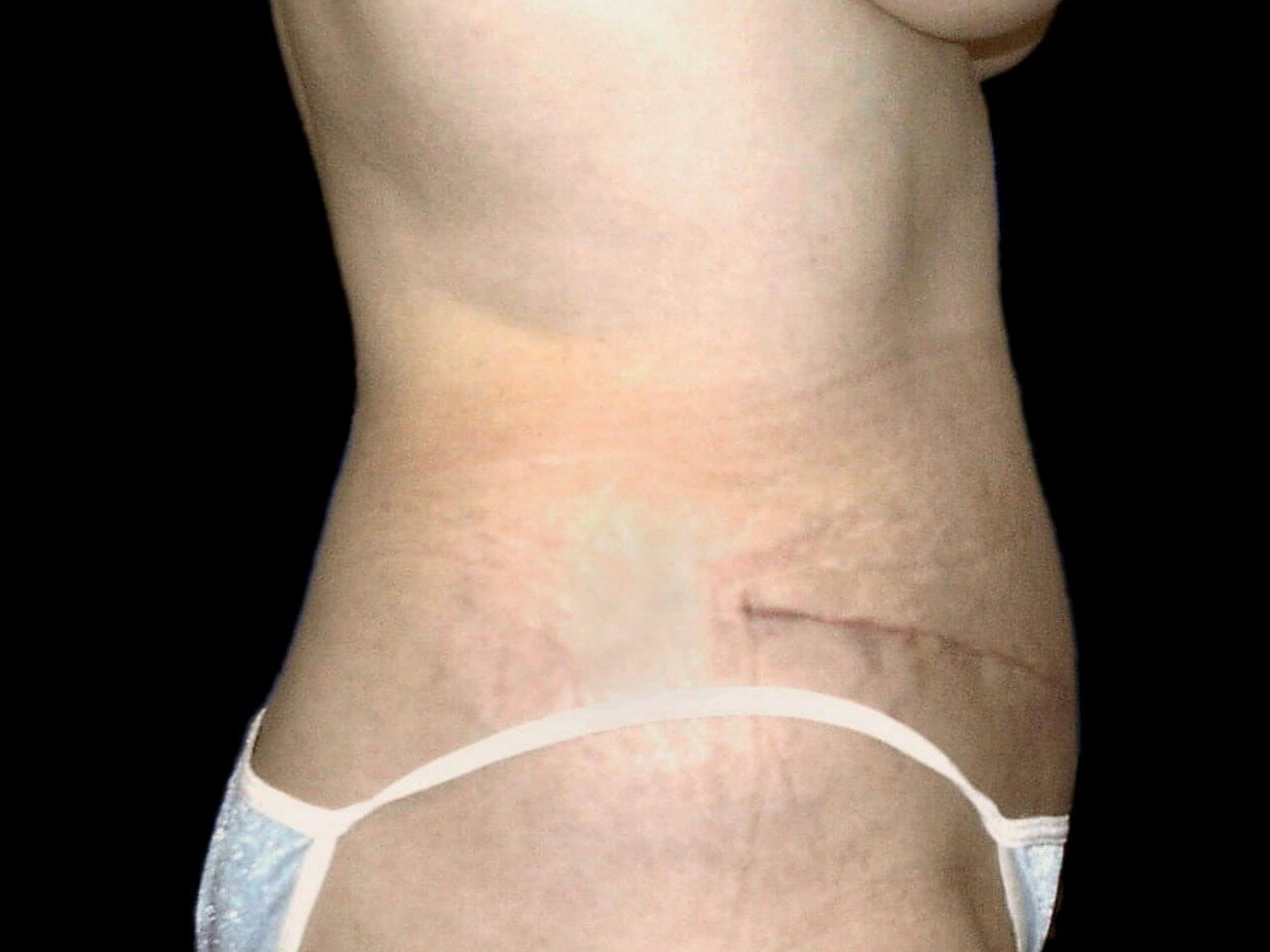 ROCKWALL, TEXAS WOMAN GETS FLAT ABS AND SMALLER WAIST WITH A TUMMY TUCK.