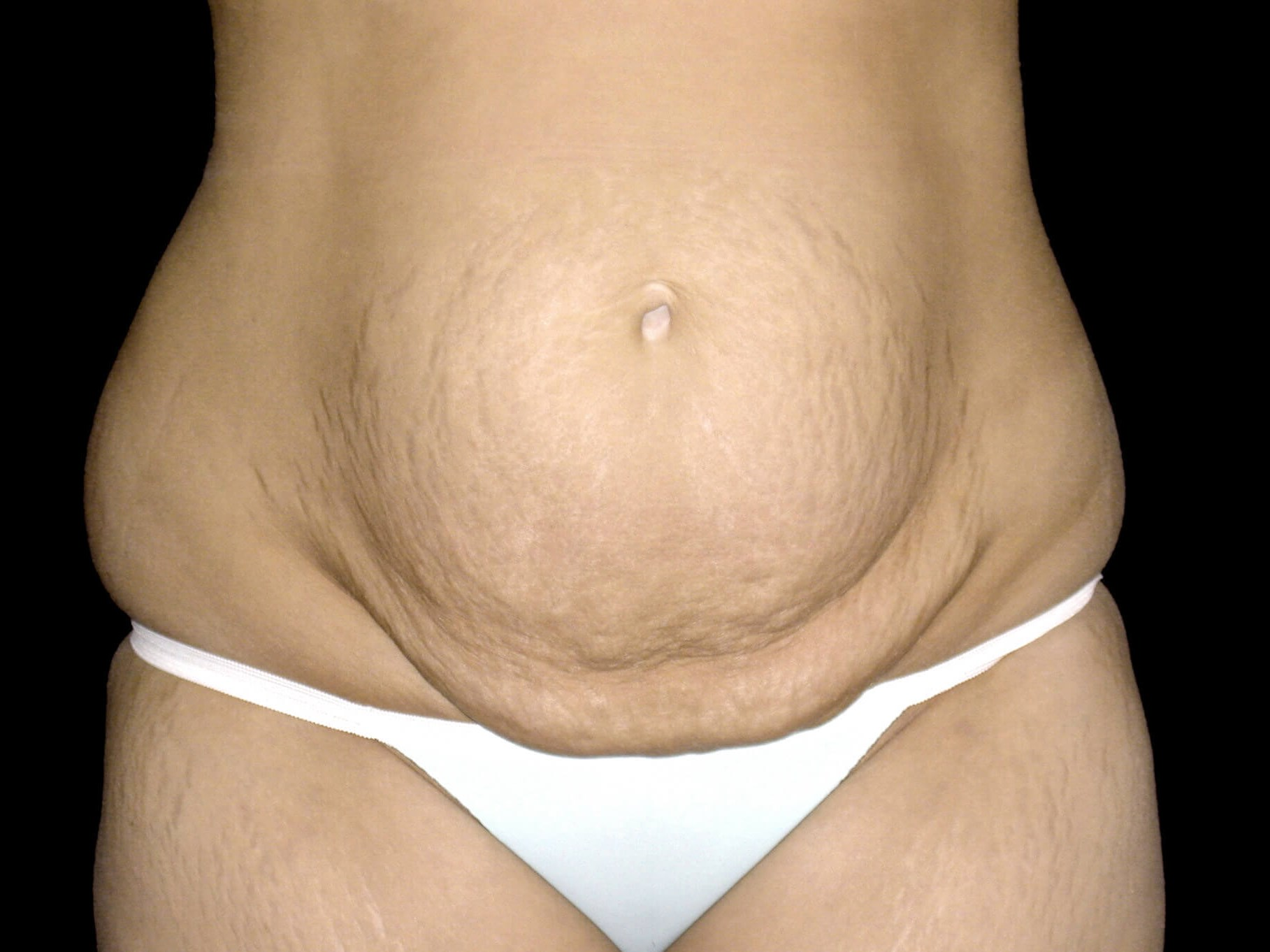 DALLAS, TEXAS WOMAN FLATTENS TUMMY WITH ABDOMINOPLASTY PROCEDURE