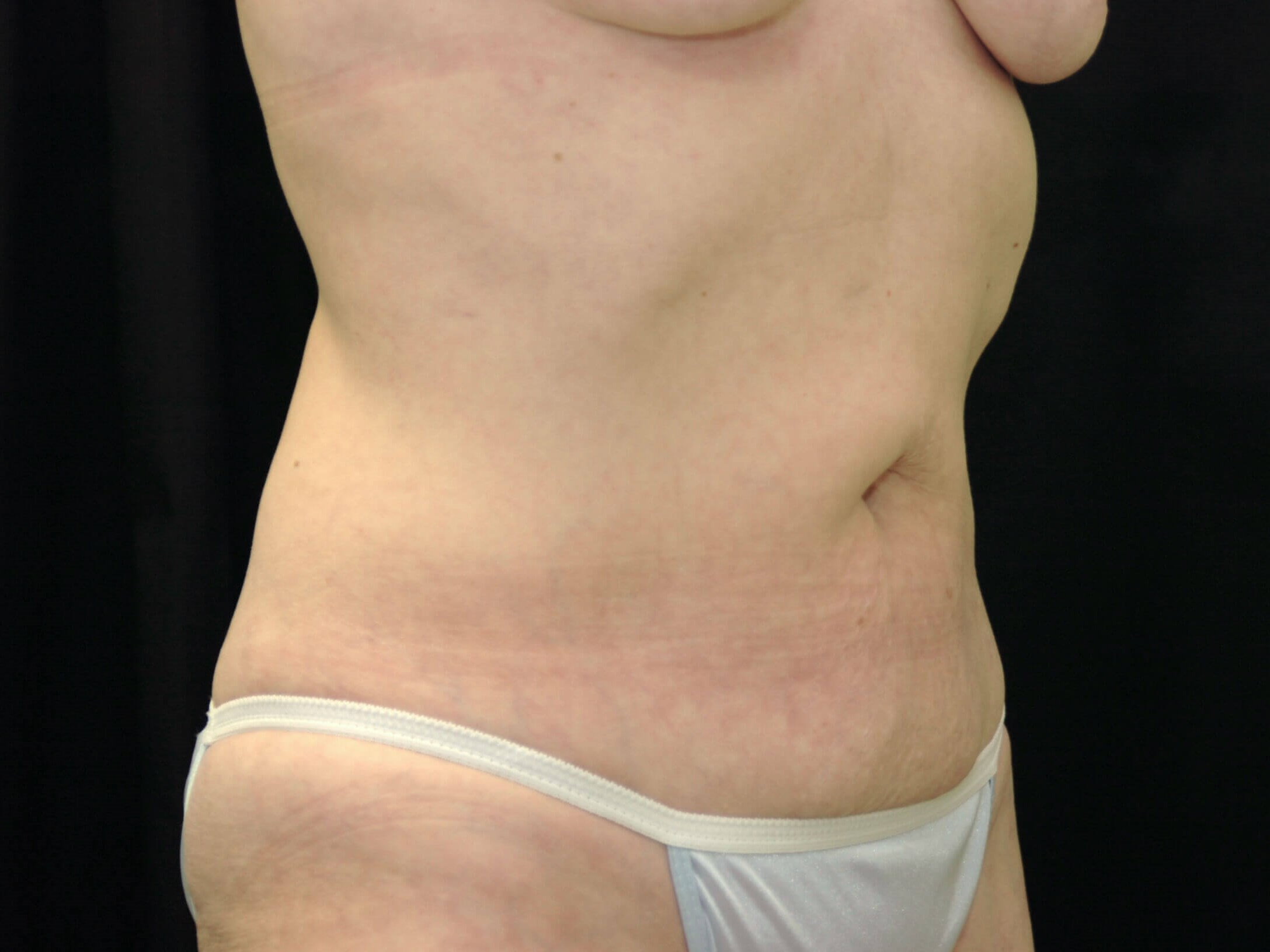 DALLAS, TEXAS WOMAN HAS TUMMY TUCK TO REJUVENATE HER WAISTLINE