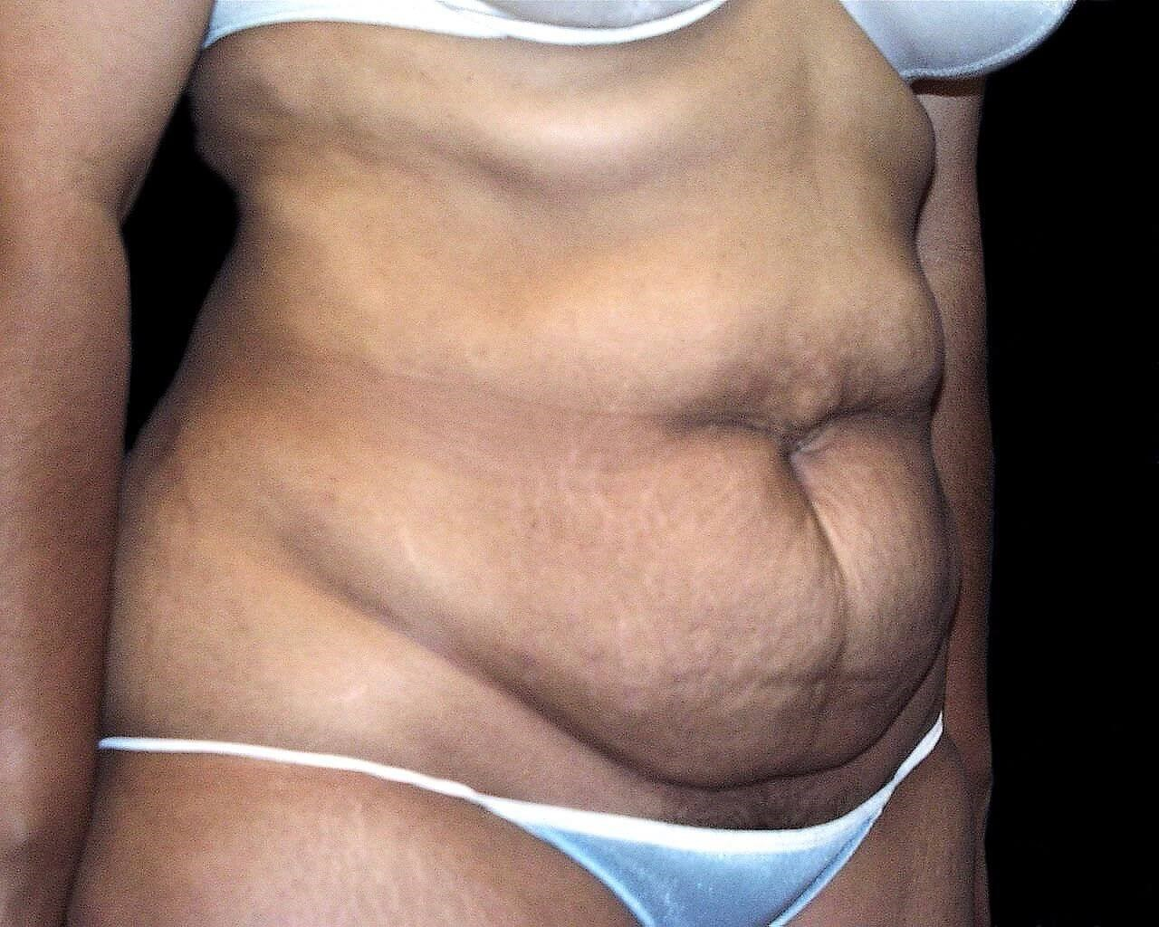 DALLAS, TEXAS WOMAN DEFINES HER WAISTLINE BY HAVING A TUMMY TUCK WITH LIPOSUCTION
