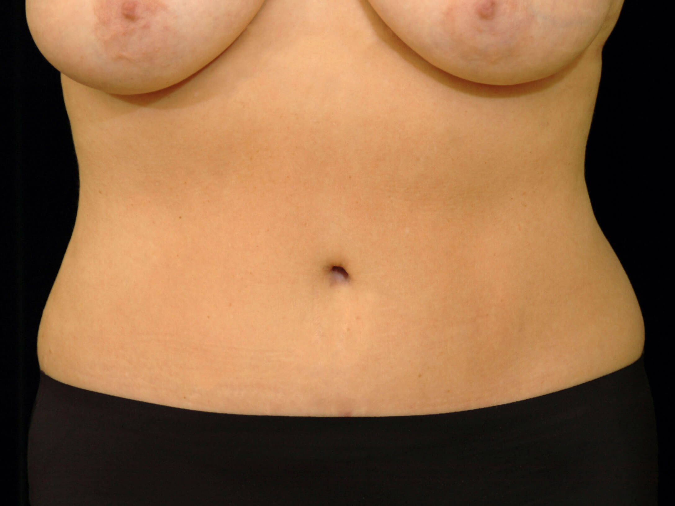 ALLEN, TEXAS WOMAN GETS MIDSECTION MAKEOVER WITH A TUMMY TUCK PROCEDURE