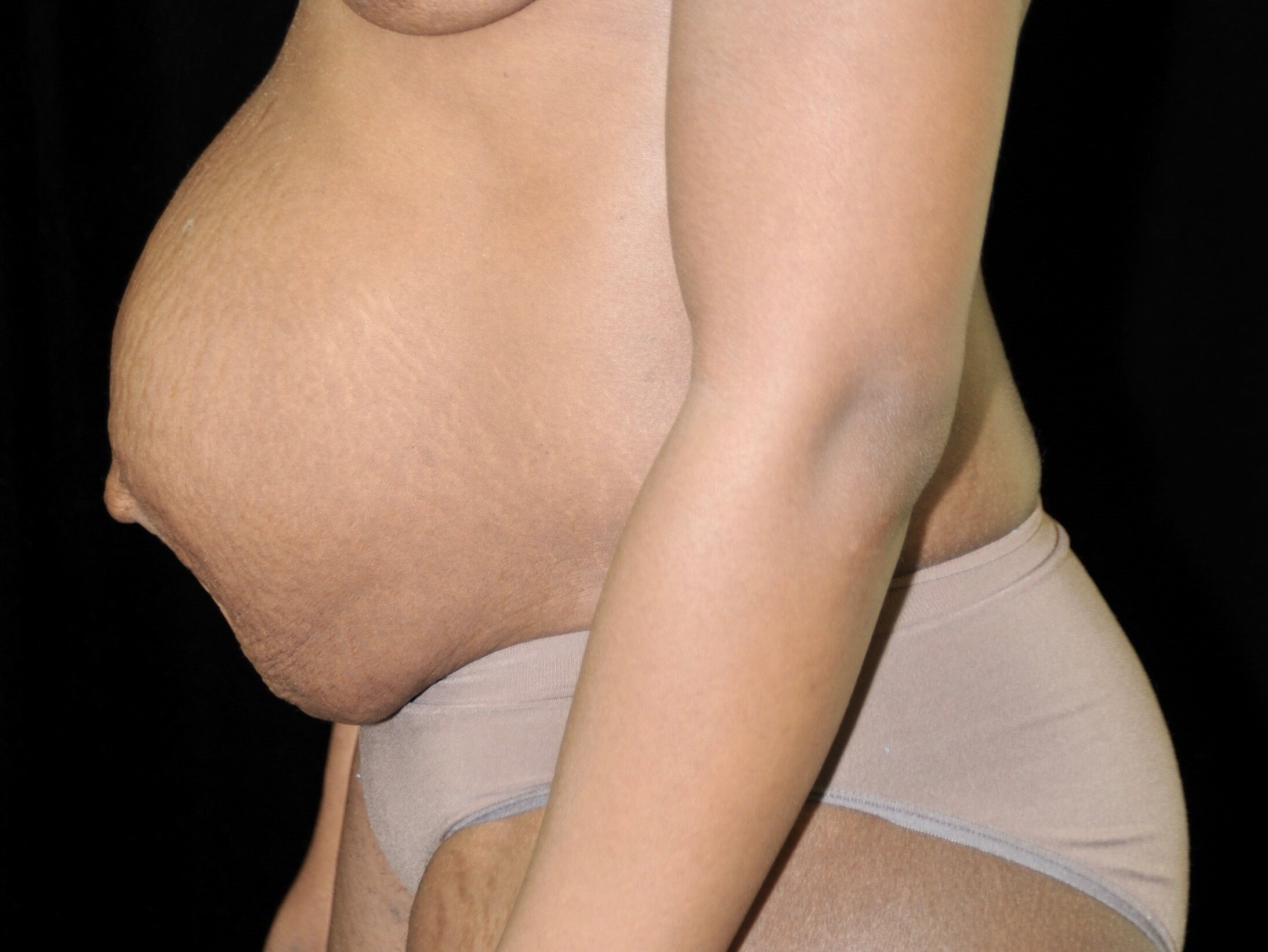 DALLAS MOM GETS MIDSECTION MAKEOVER WITH TUMMY TUCK SURGERY