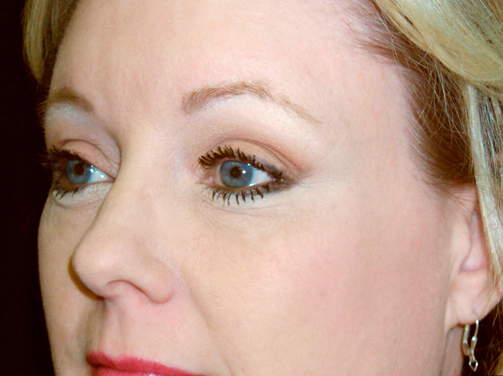 DALLAS, TEXAS WOMAN AWAKENS FACIAL EXPRESSION WITH BROW LIFT PROCEDURE