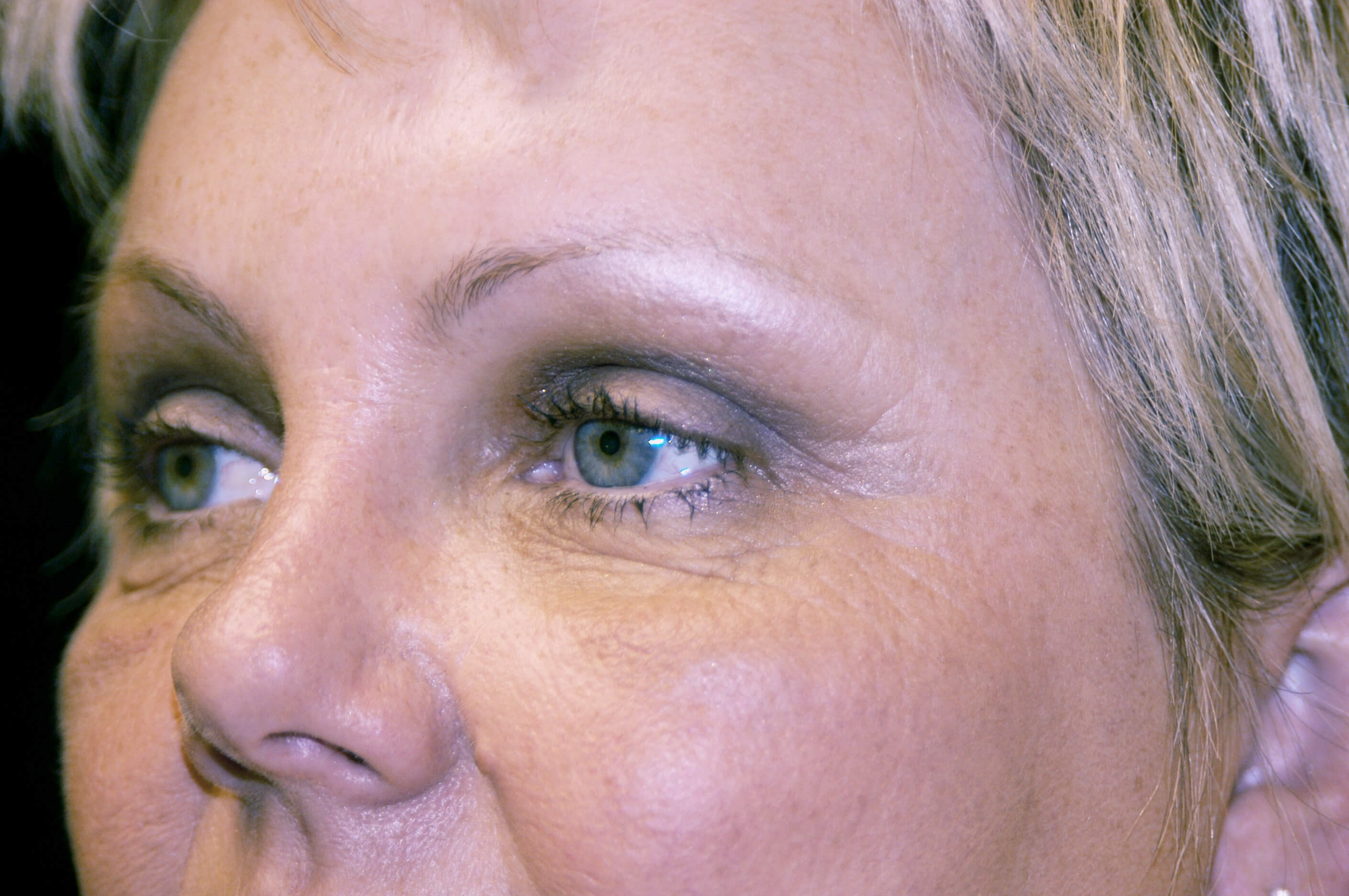 DALLAS, TEXAS WOMAN SMOOTHS AND LIFTS HER FOREHEAD WITH BROW LIFT SURGERY