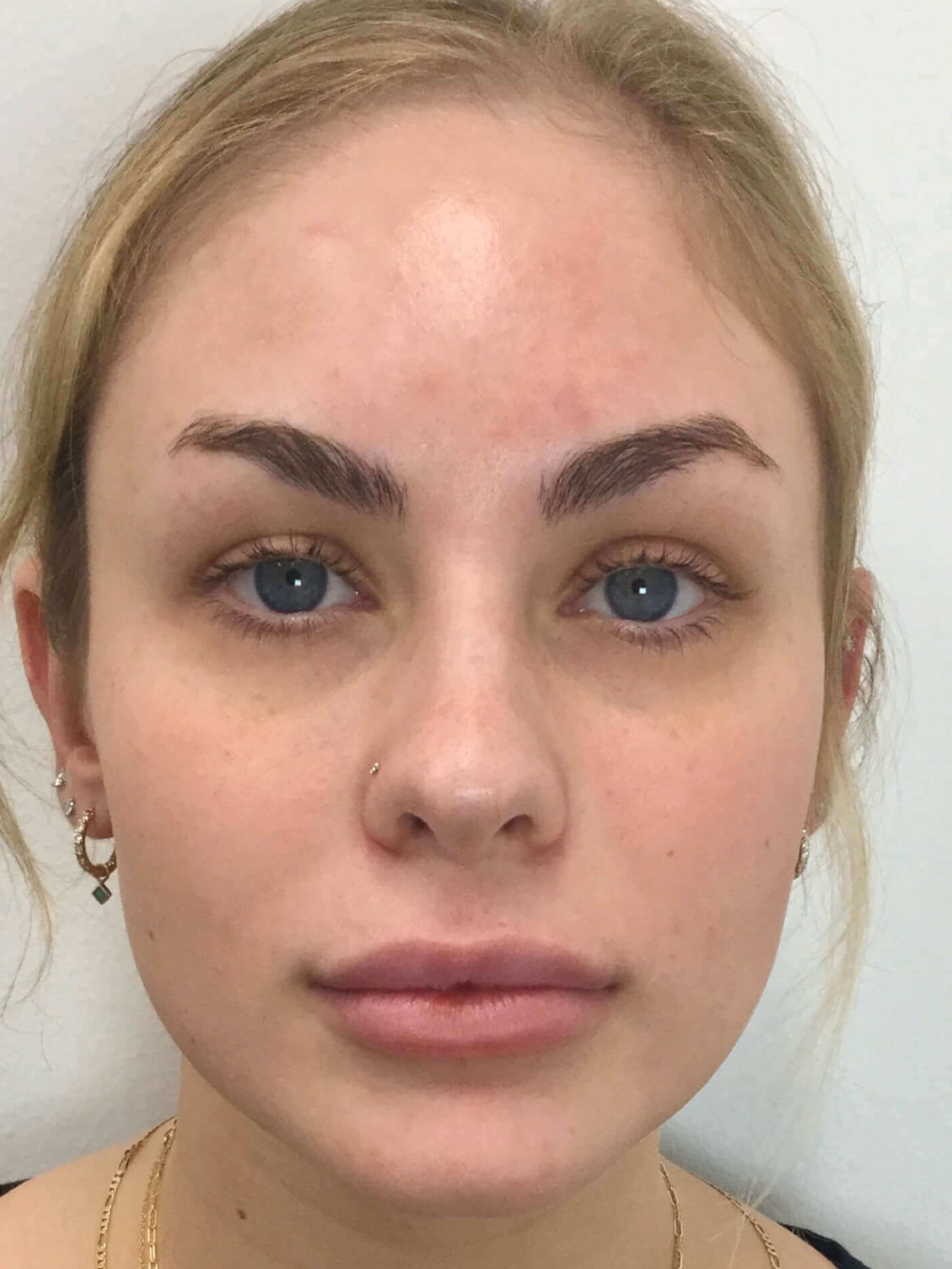 WOMAN IN DALLAS HAS DERMAL FILLER TREATMENT WITH RESTYLANE AND VOLUMA