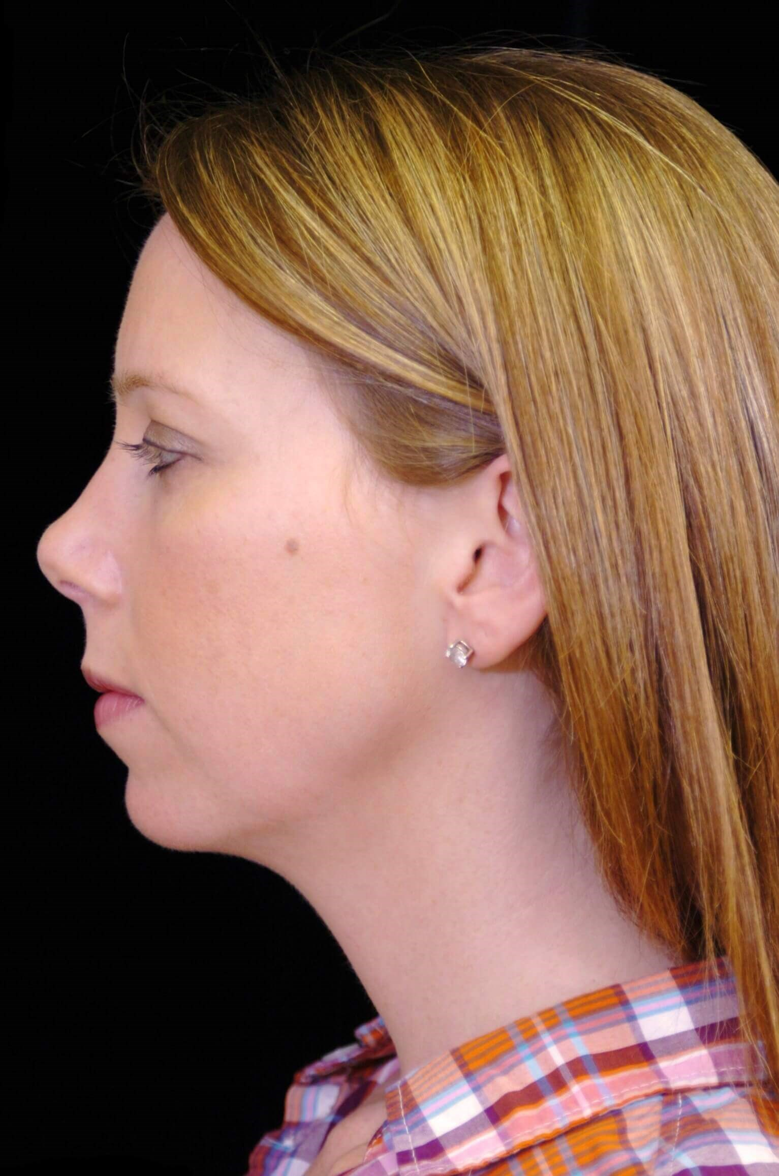 PLANO WOMAN ENHANCES PROFILE BY AUGMENTING CHIN WITH A CHIN IMPLANT